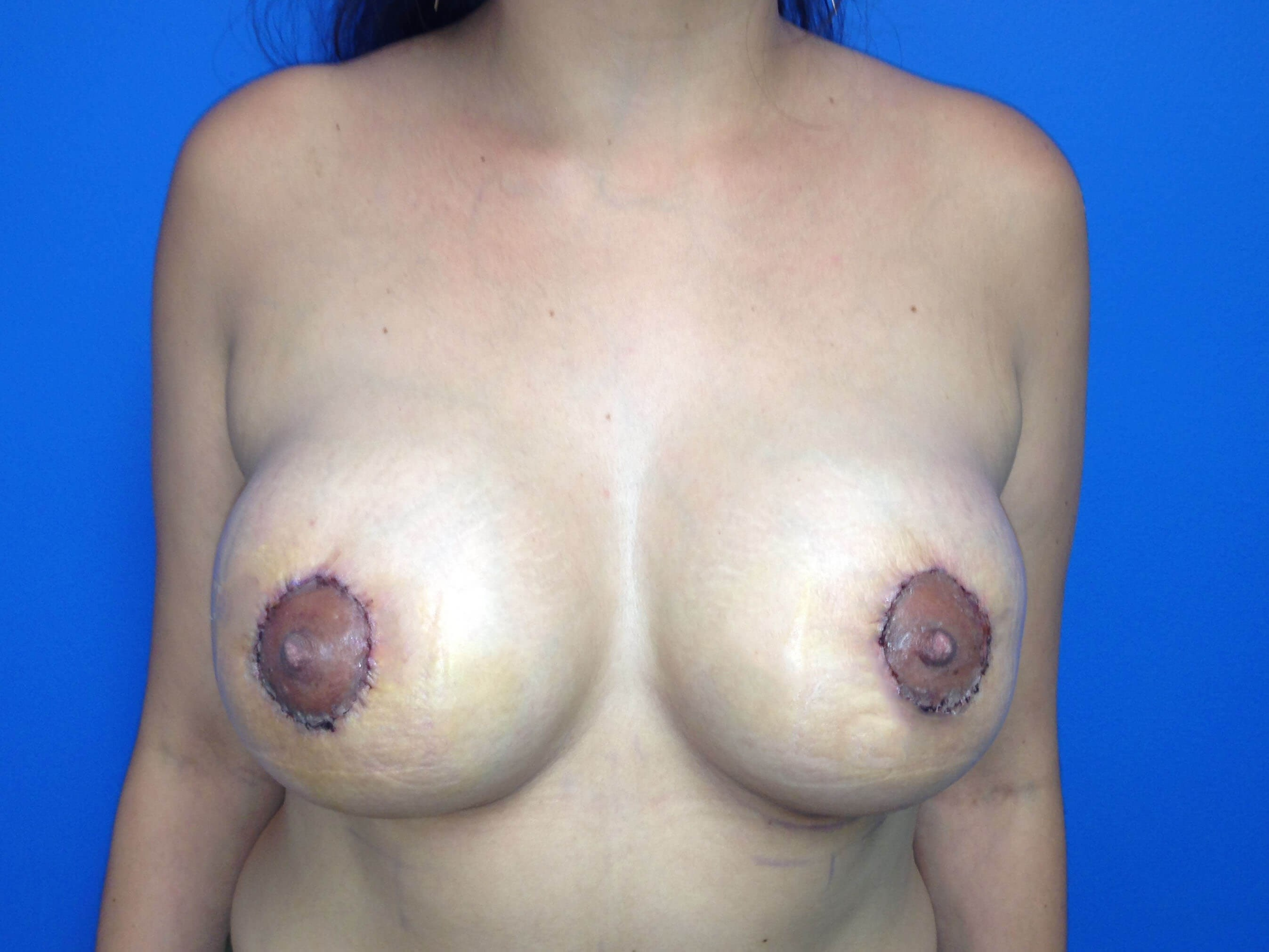 Breast Augmentation After - Front View