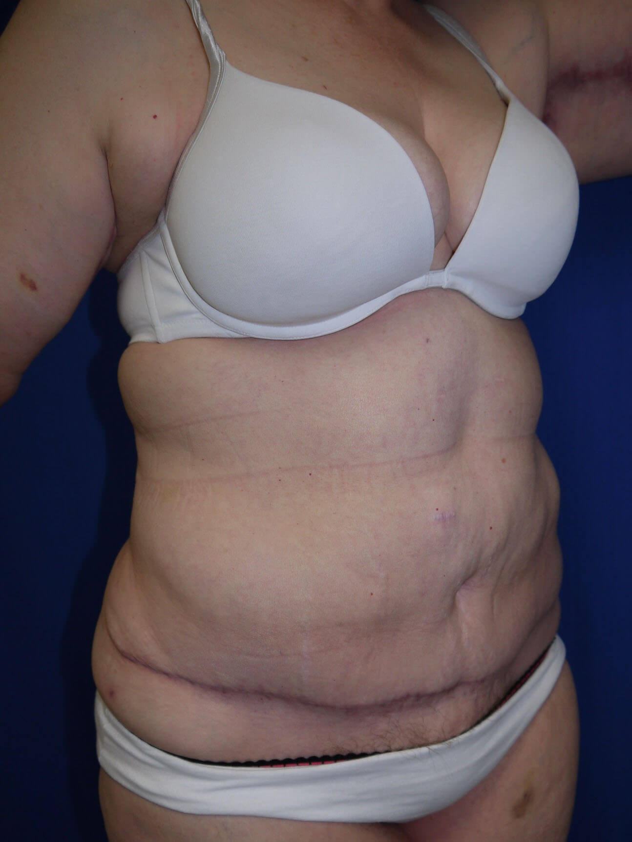 Panniculectomy after - Right Oblique View