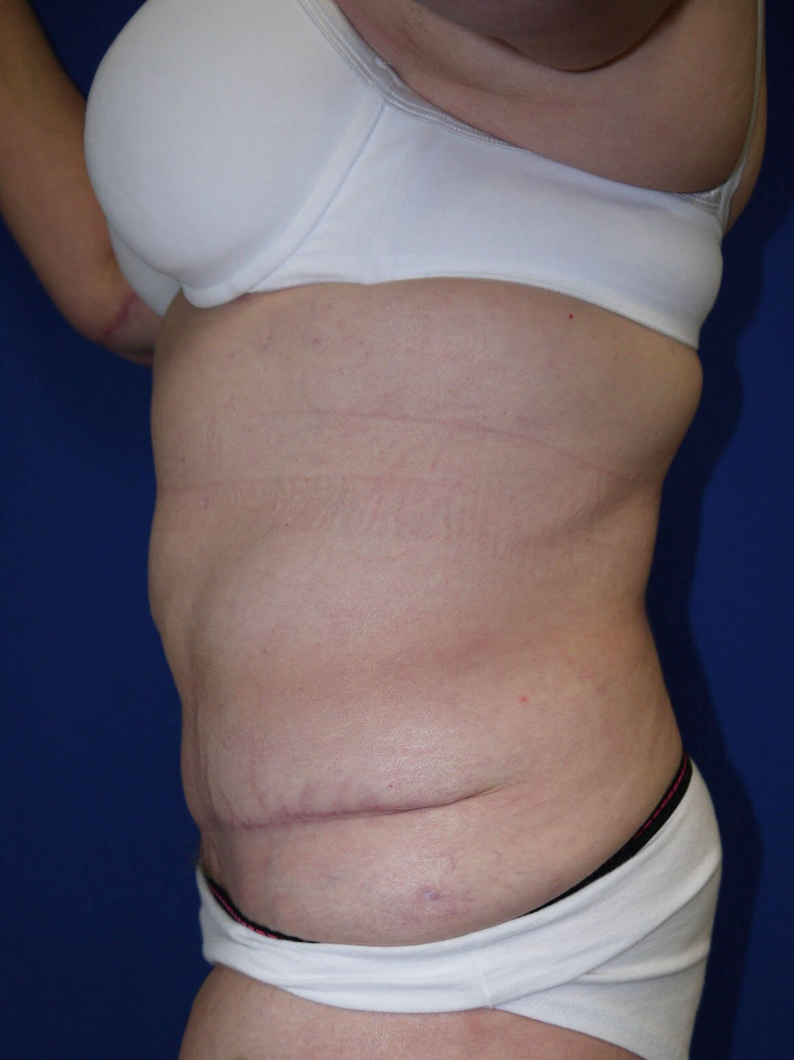 Panniculectomy after - Left Side
