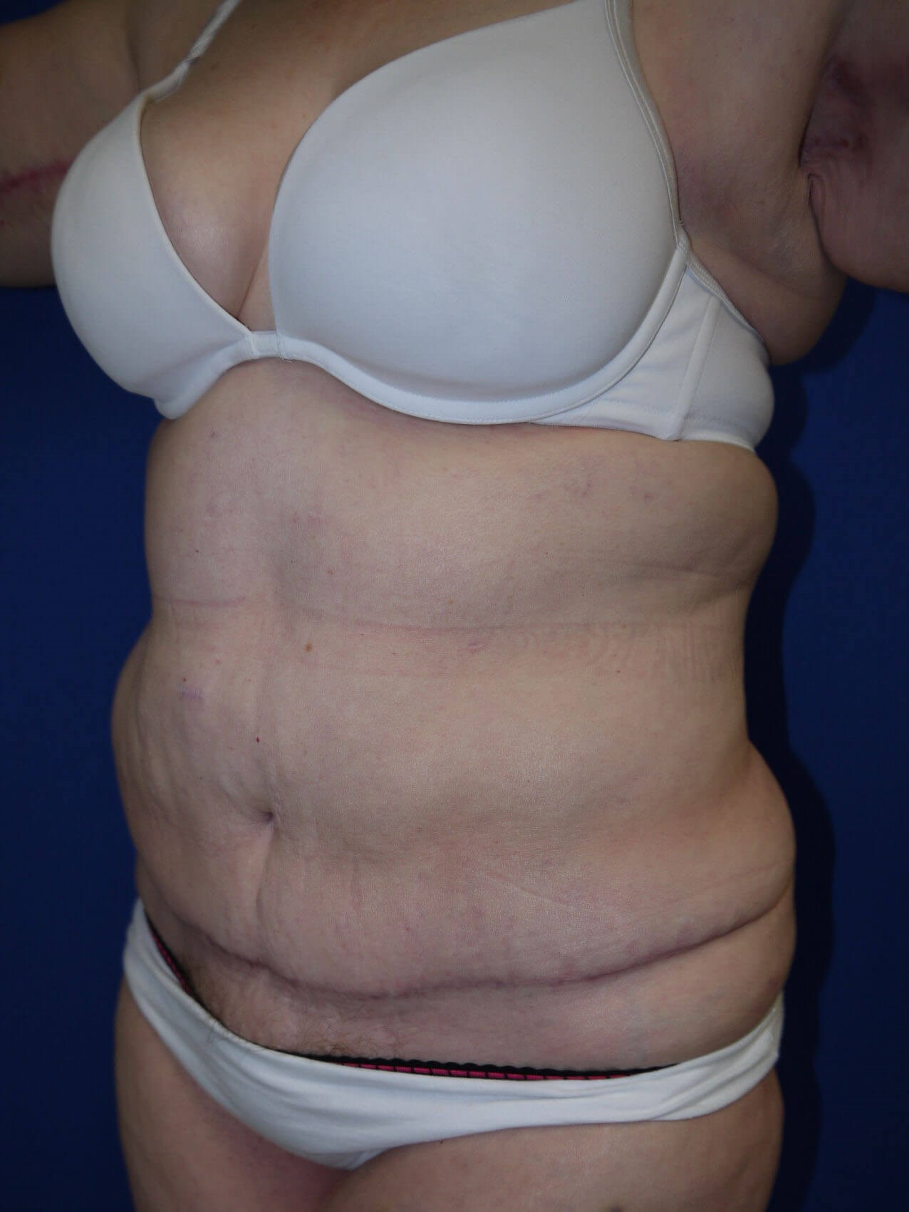 Panniculectomy after - Left Oblique View