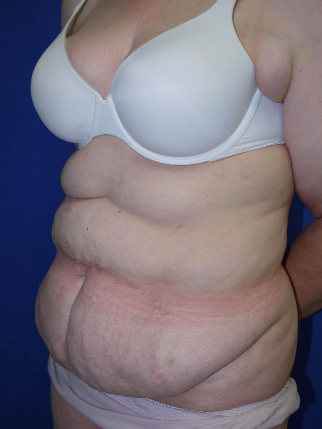 Panniculectomy Before - Left Oblique View