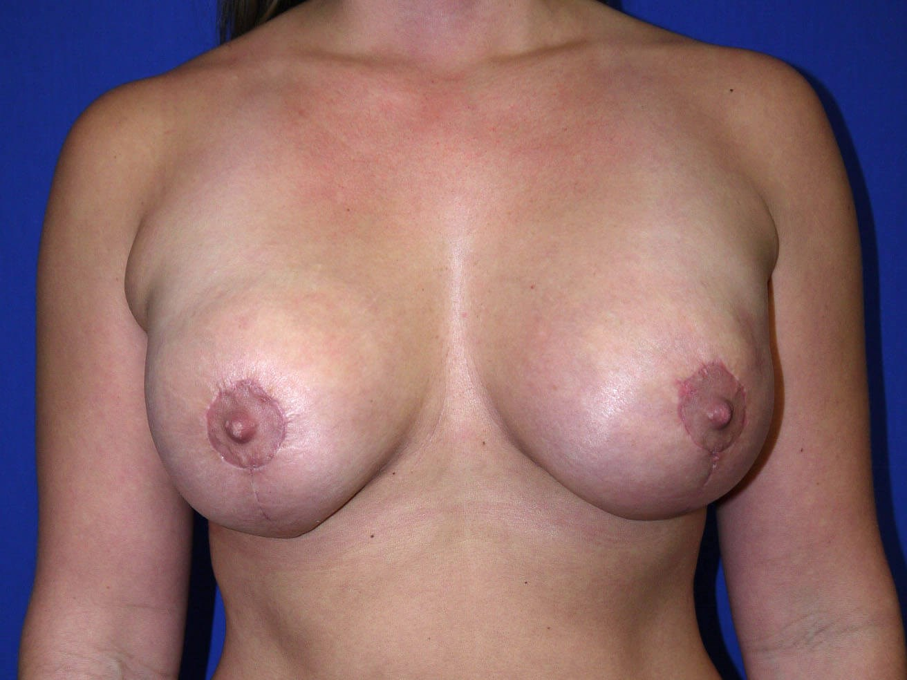 Fat Transfer to Breast After - Front View