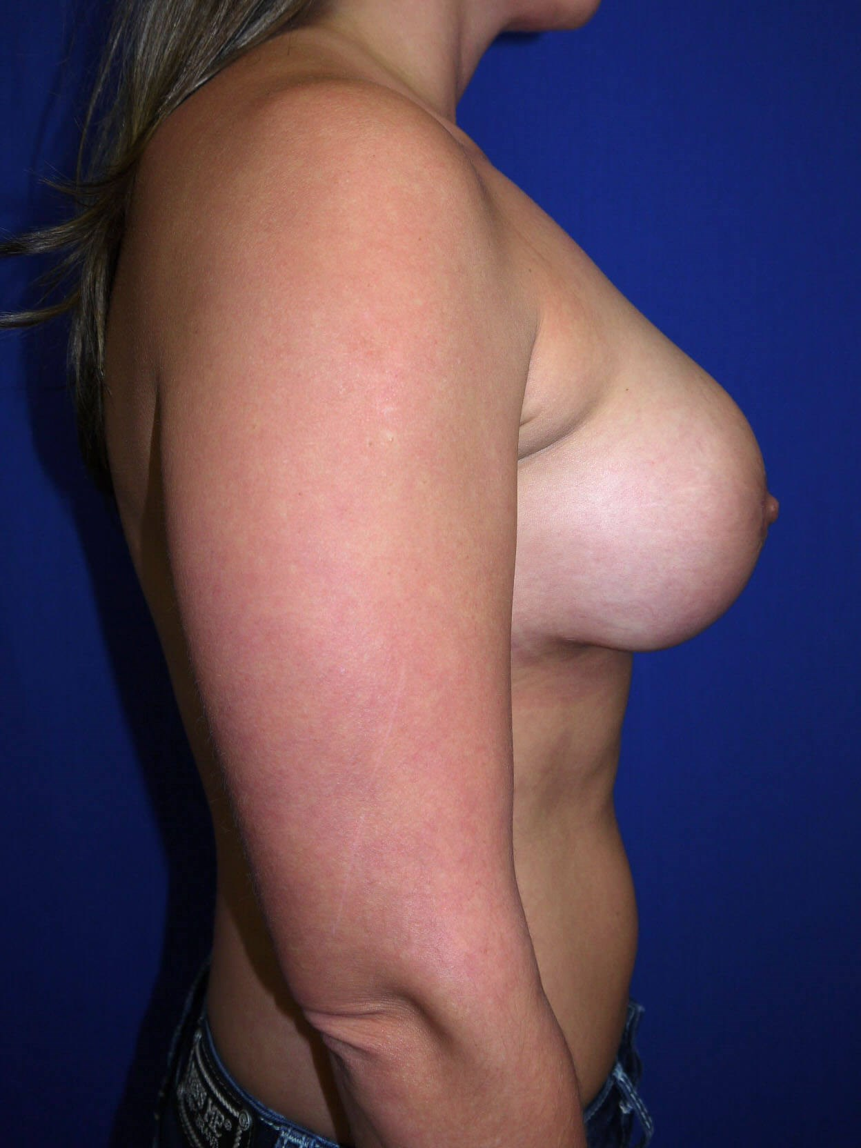 Fat Transfer to Breast After - Right Side