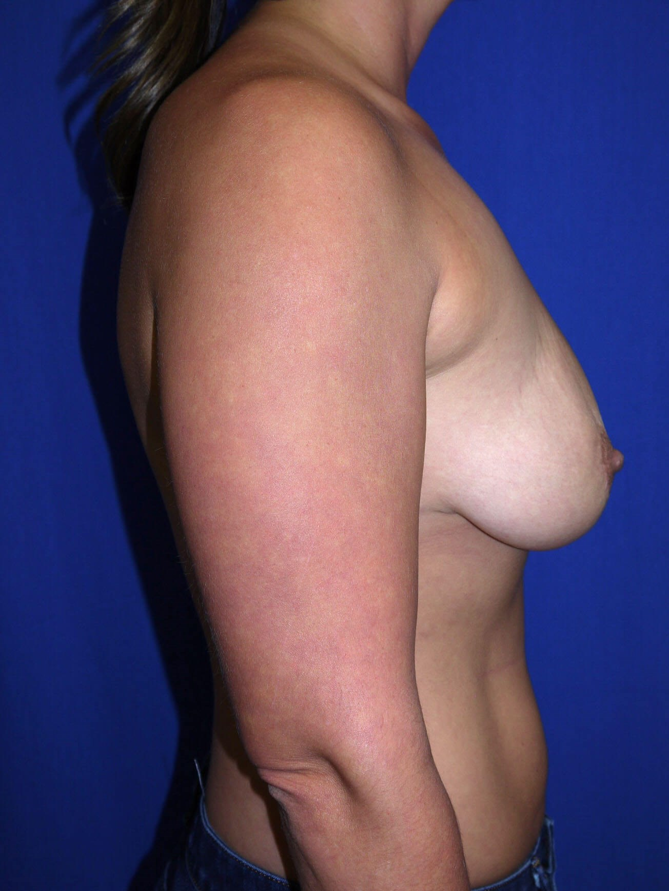 Fat Transfer to Breast Before - Right Side