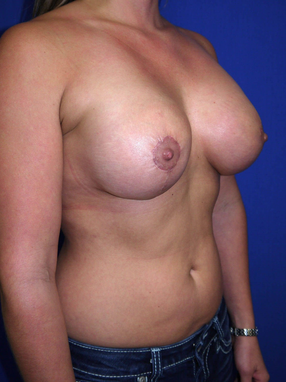 Fat Transfer to Breast After - Right Oblique View
