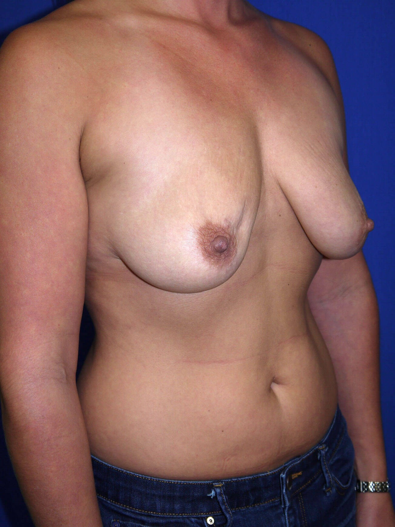 Fat Transfer to Breast Before - Right Oblique View