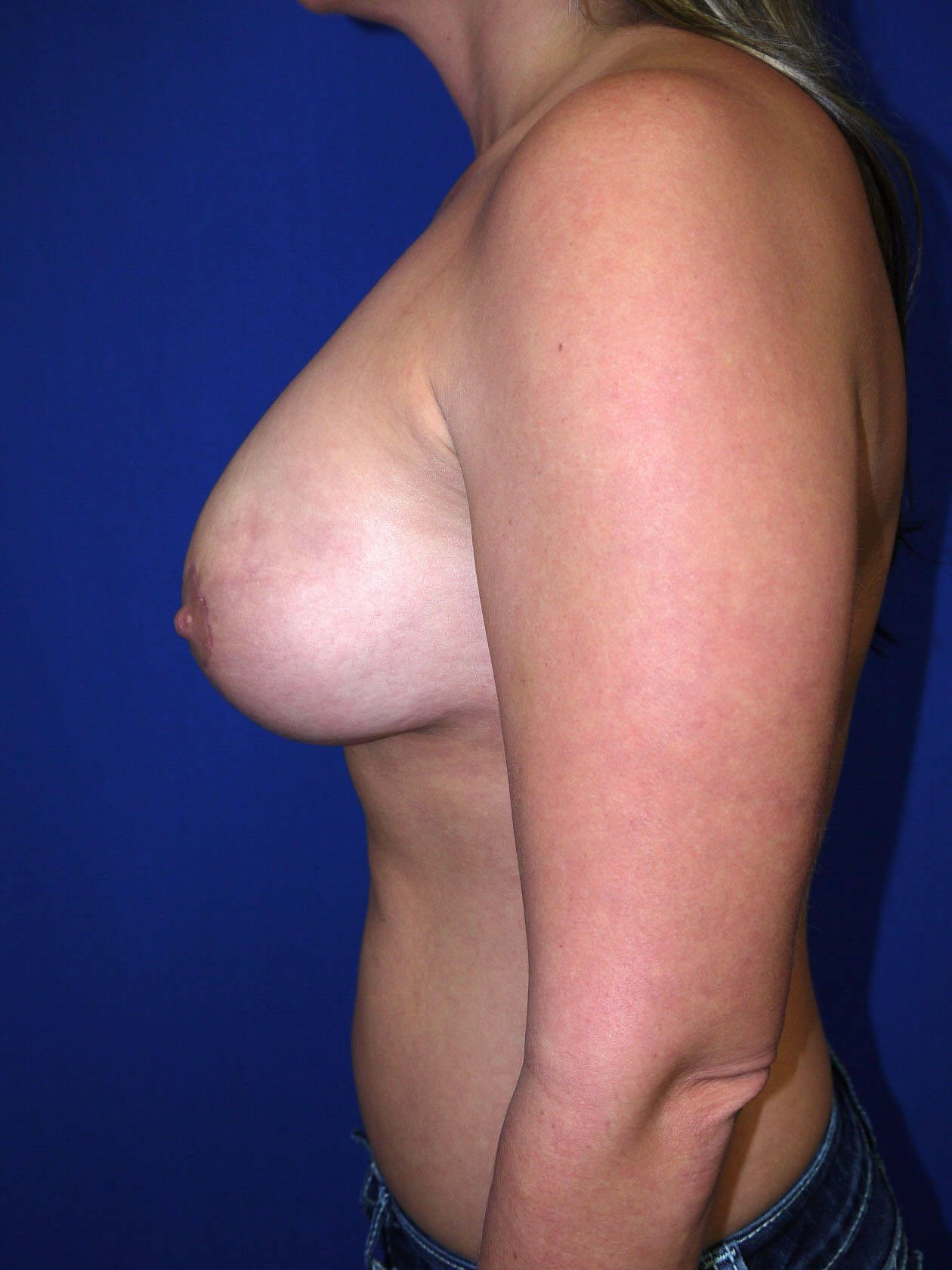 Fat Transfer to Breast After - Left Side
