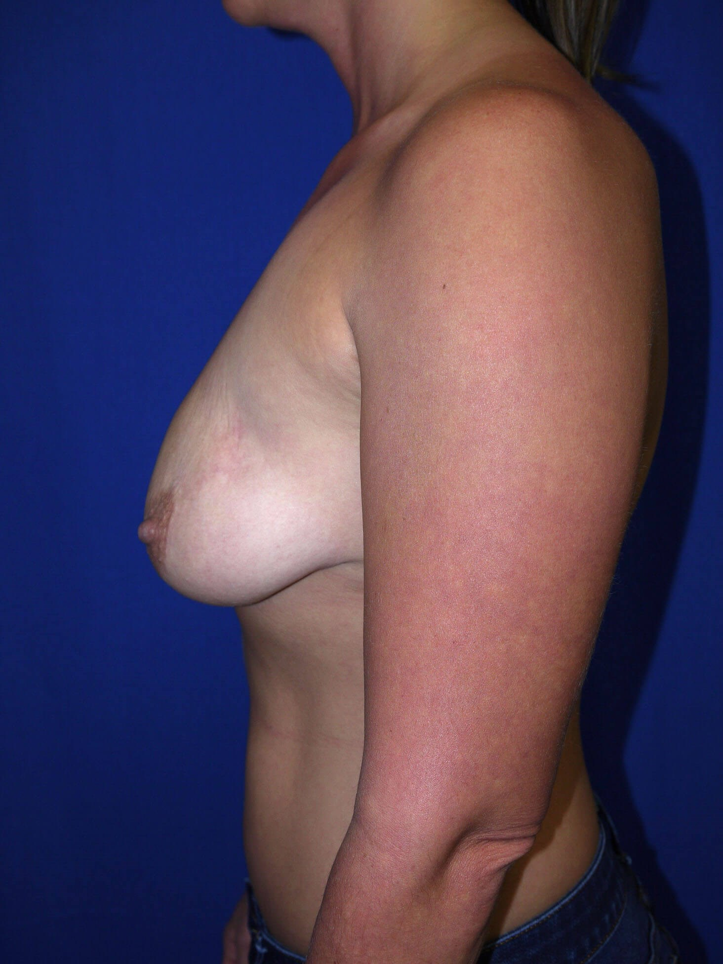 Fat Transfer to Breast Before - Left Side