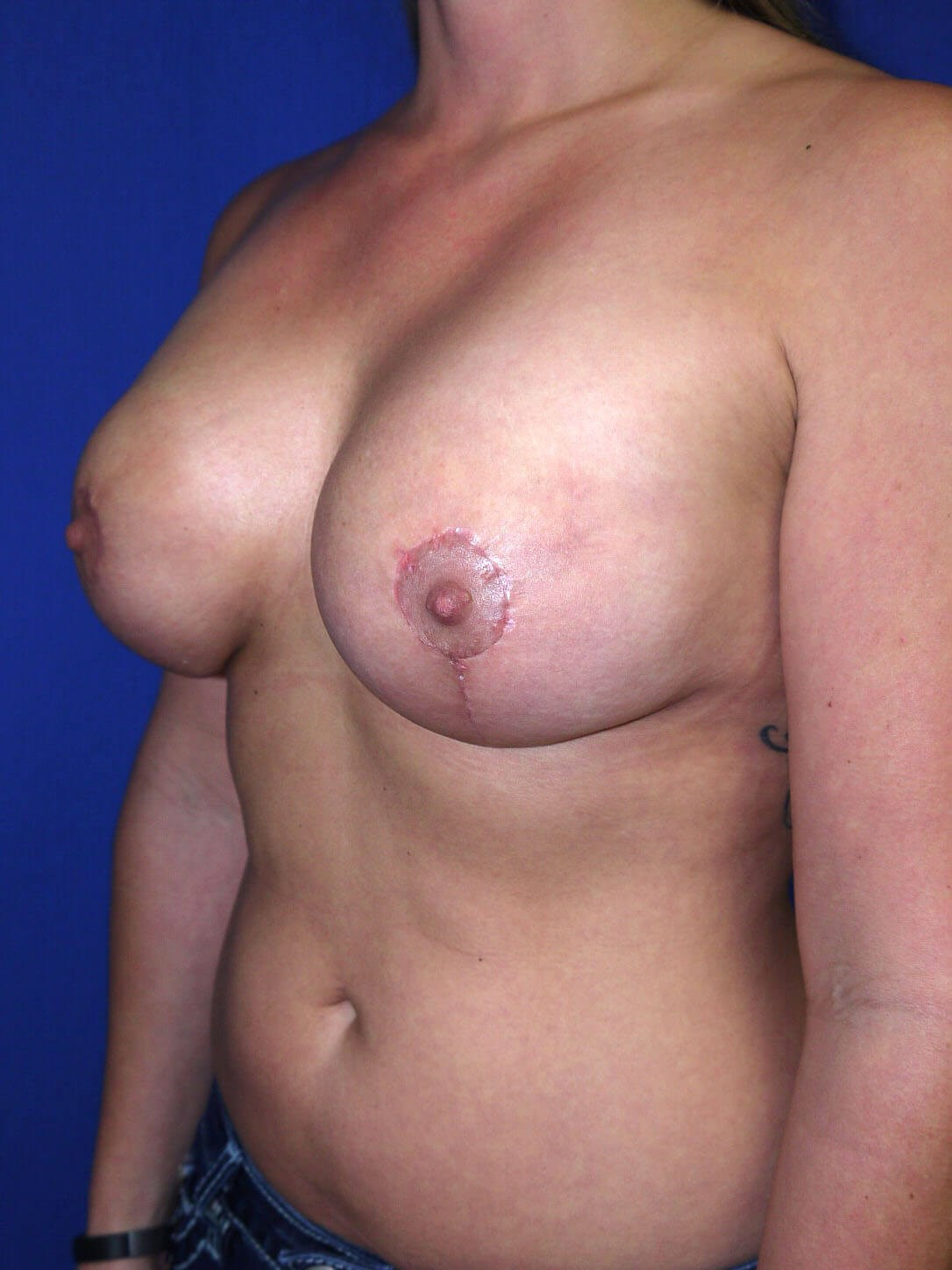 Fat Transfer to Breast After - Left Oblique View