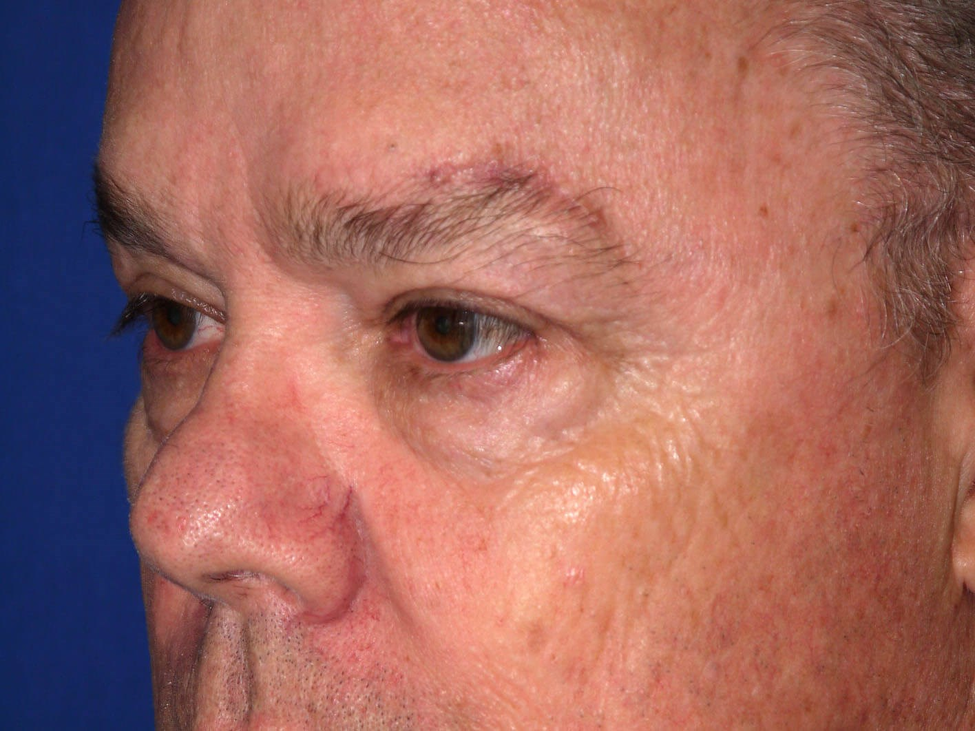 Eyelid Surgery after - Left Oblique Side