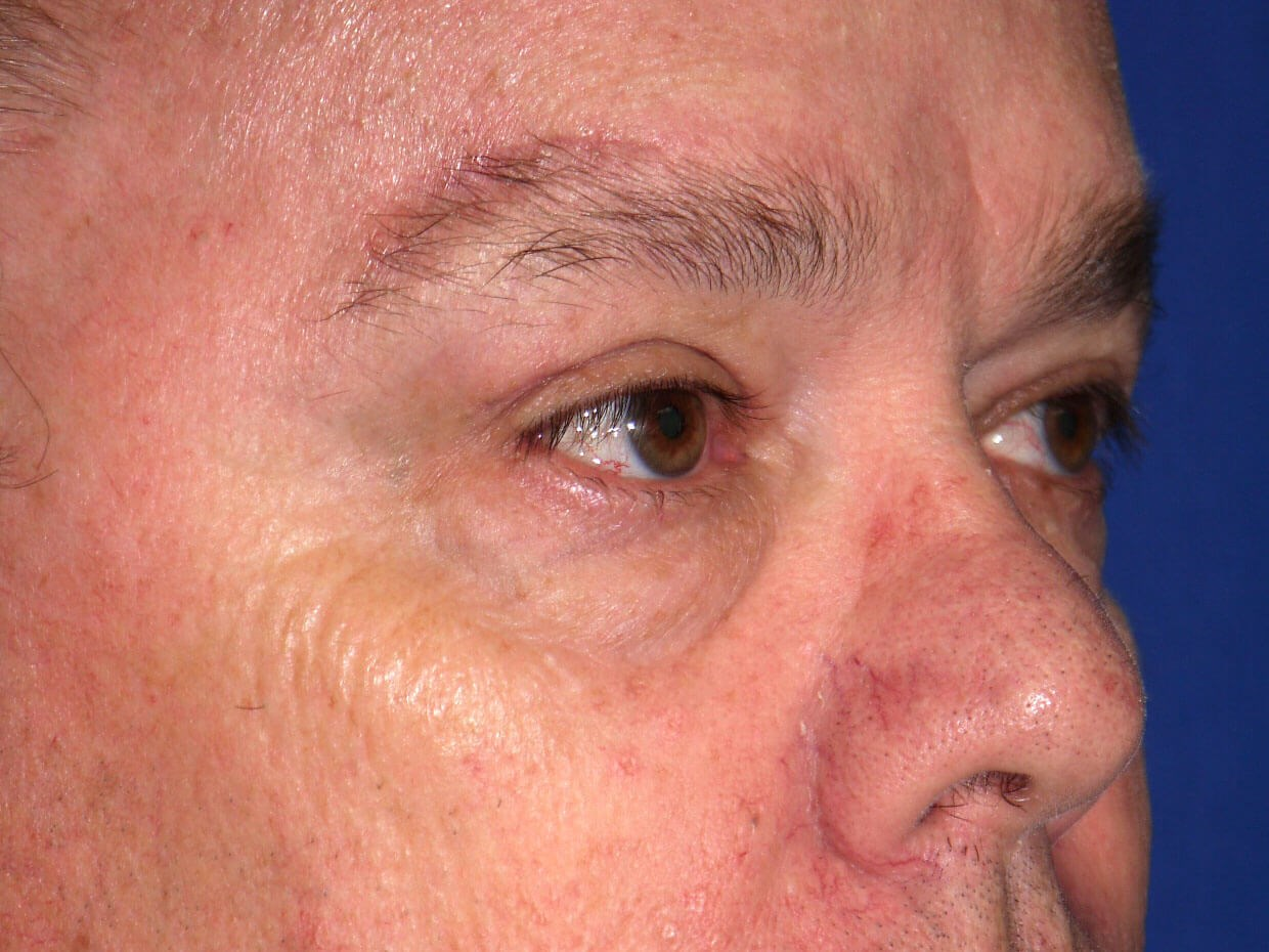 Eyelid Surgery after - Right Oblique View
