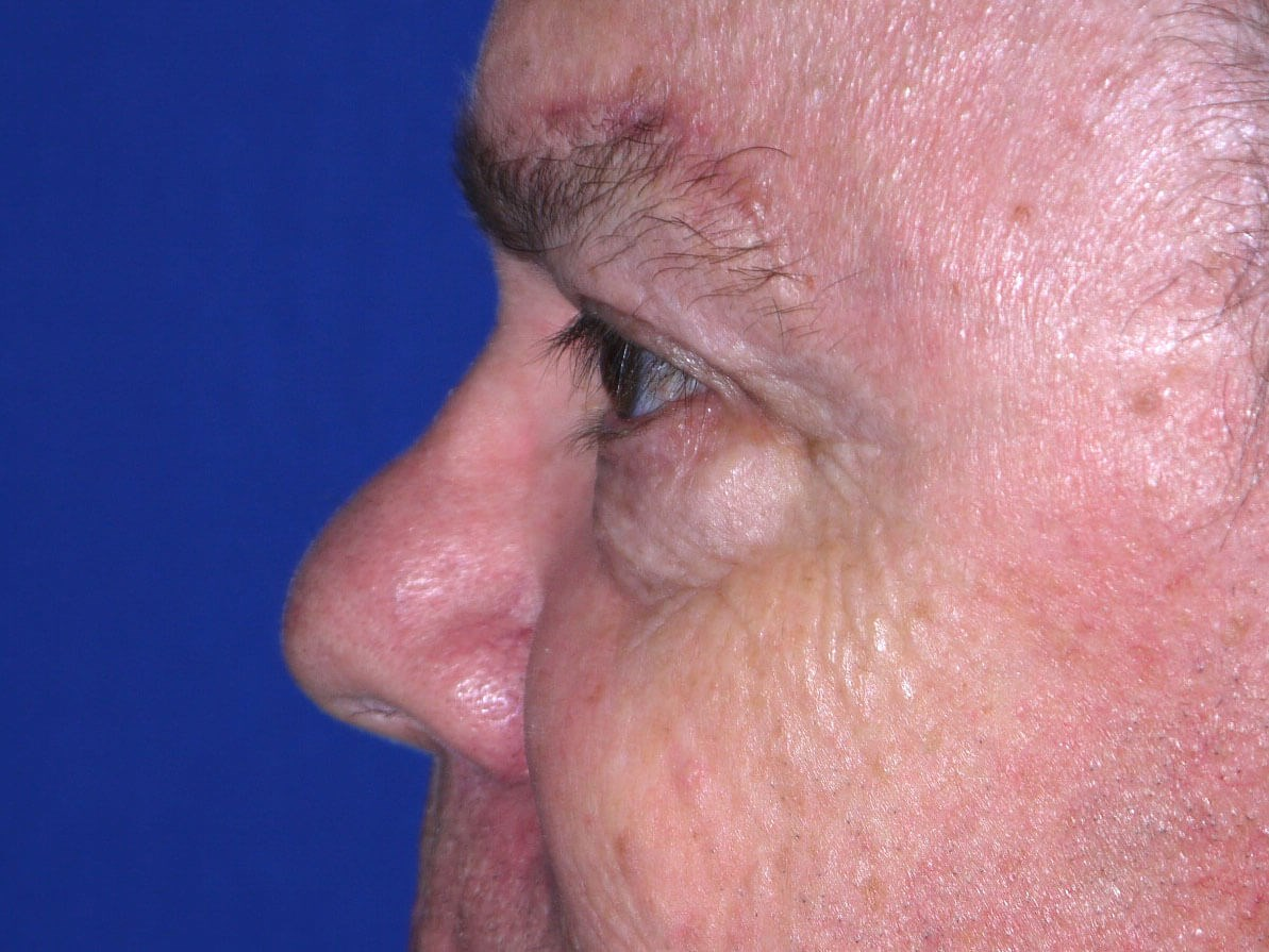 Eyelid Surgery after - Left Side