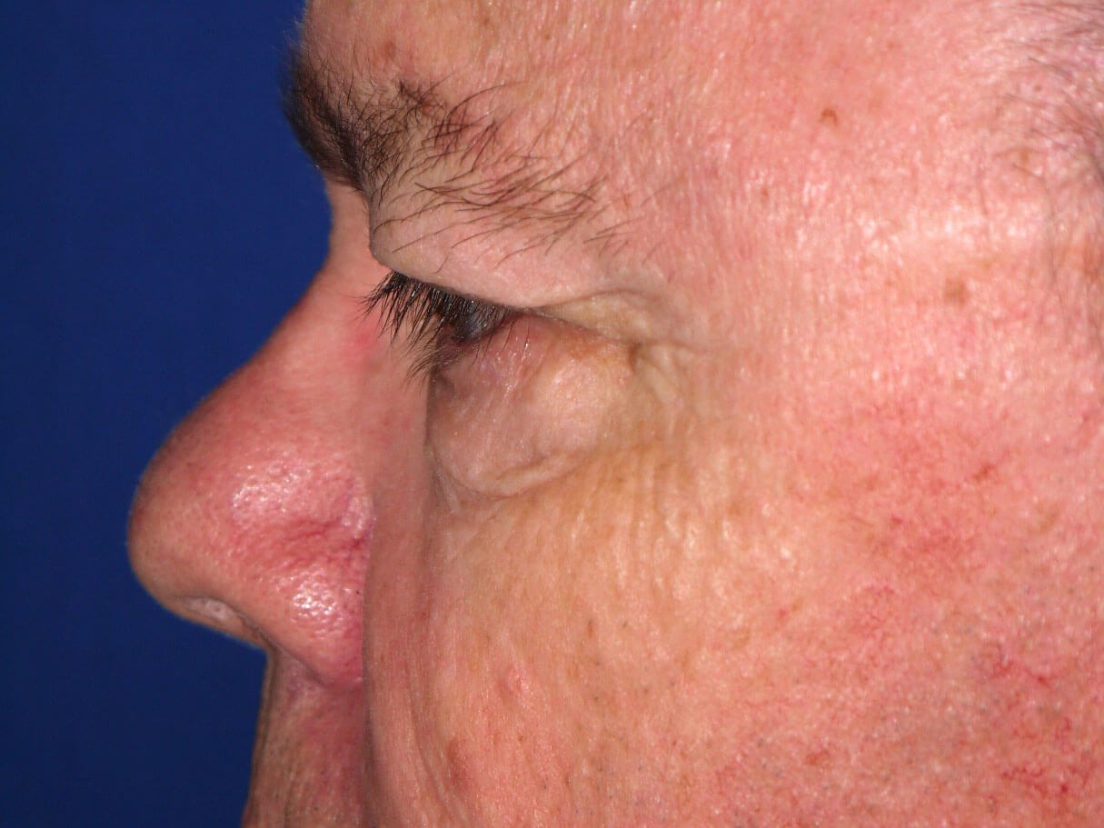 Eyelid Surgery Before - Left Side