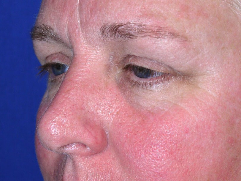 Eyelid Surgery Before - Left Oblique View