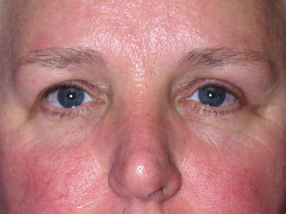 Eyelid Surgery after - Front View