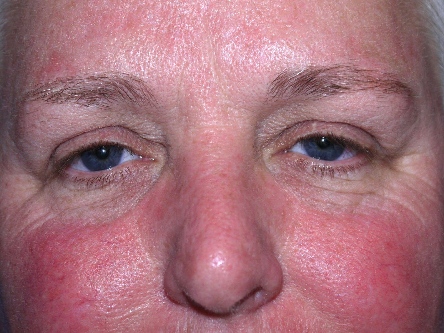 Eyelid Surgery Before - Front View