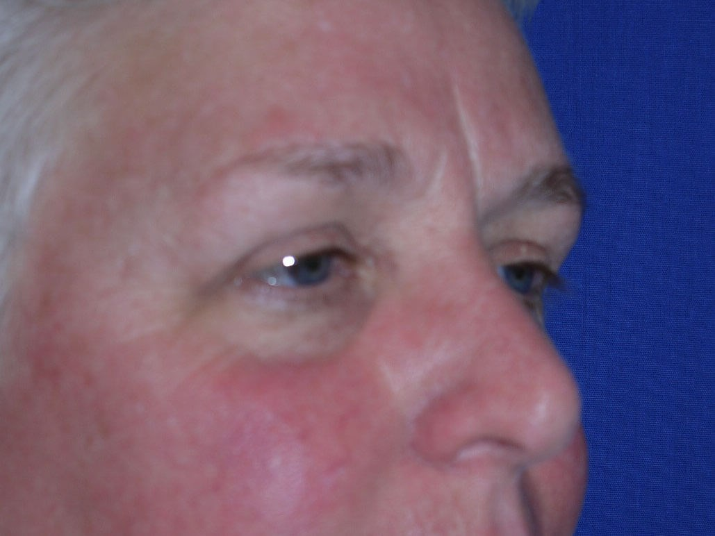 Eyelid Surgery Before - Right Oblique View