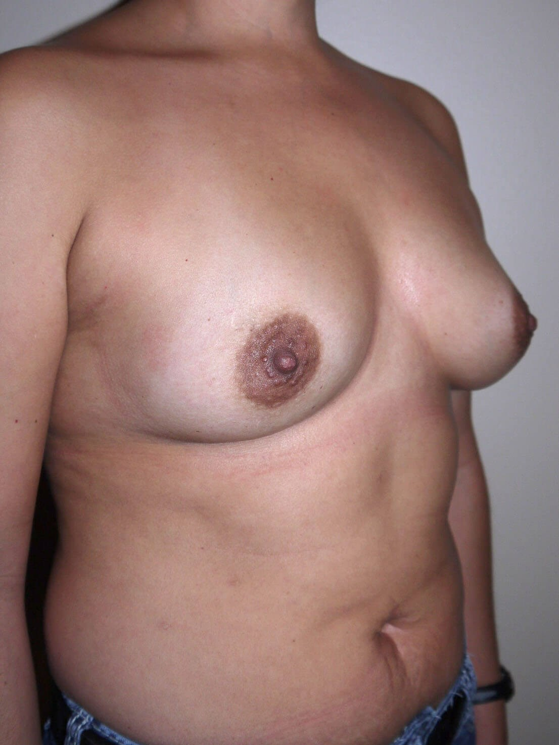 Before breast augmentation right Oblique View - right Oblique View