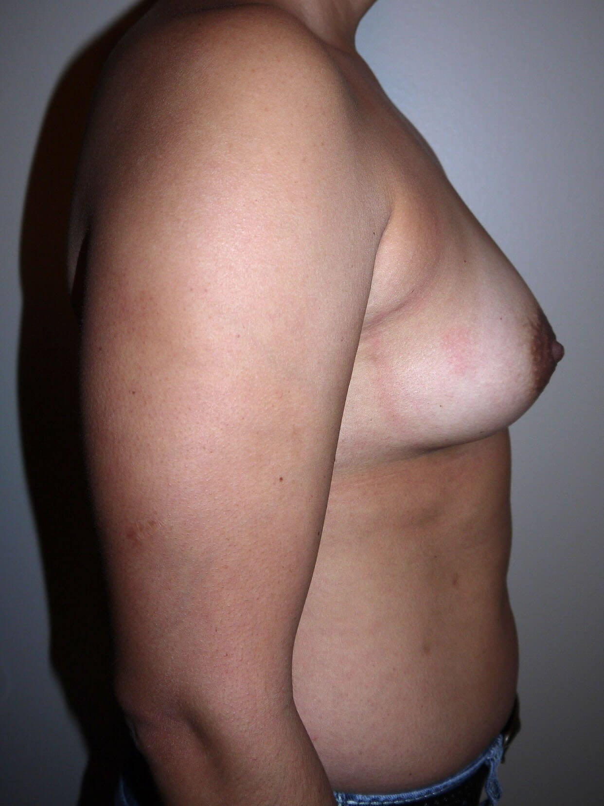 Before breast augmentation Right Side - Right Side
