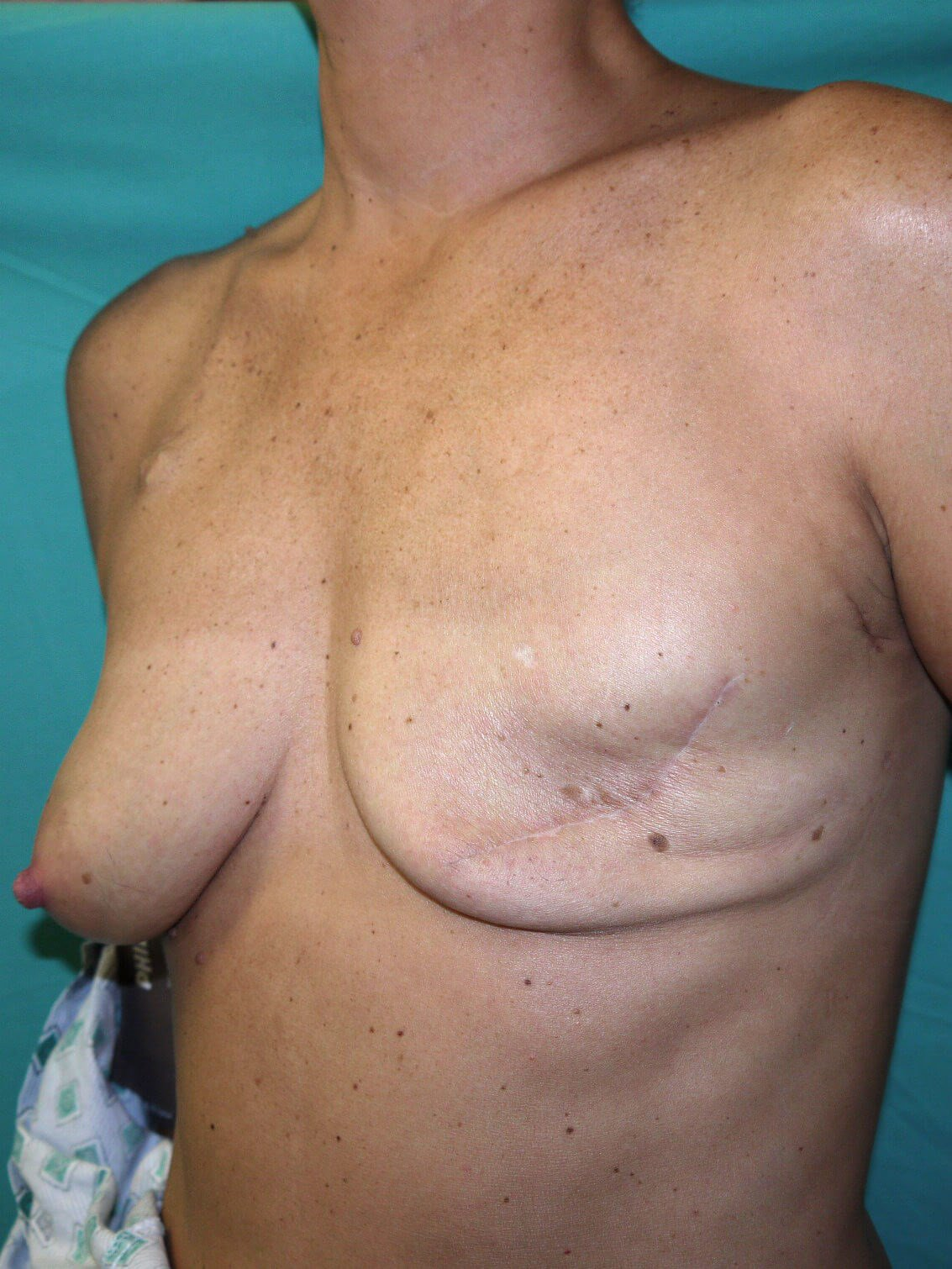 Breast Reconstruction Before - Scottsdale breast recon