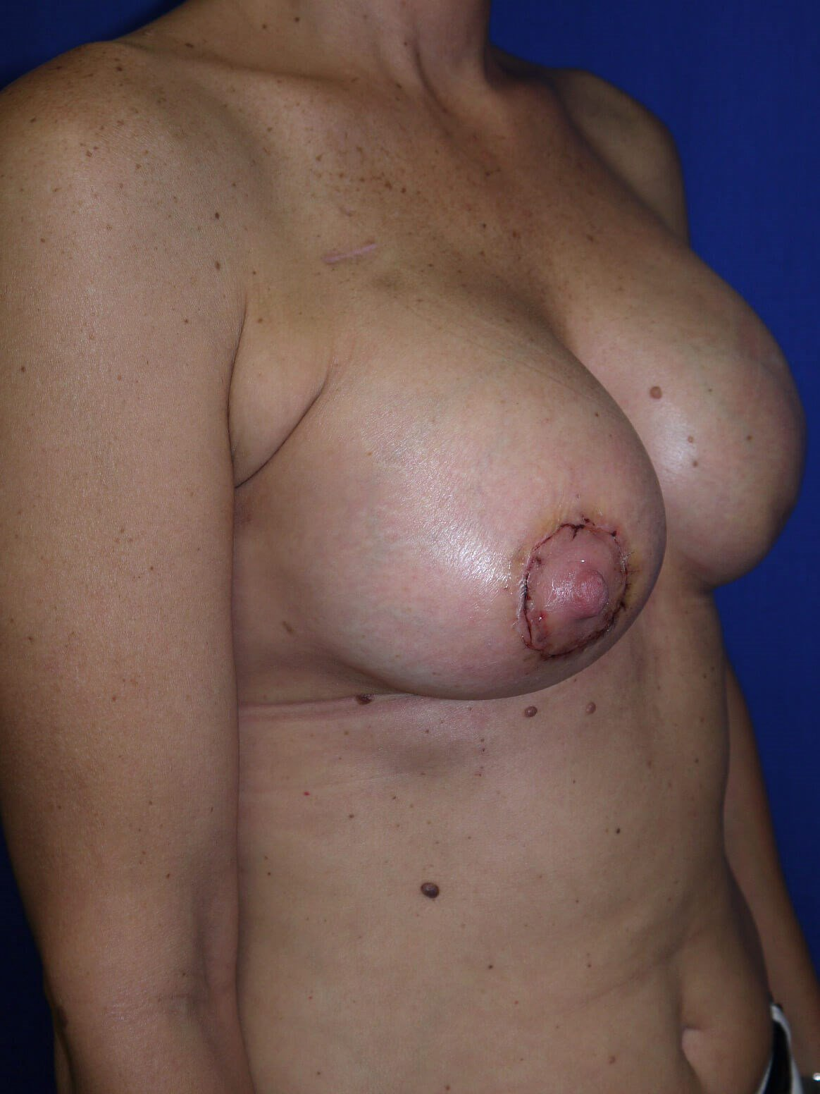 Breast Reconstruction After - Right Oblique View