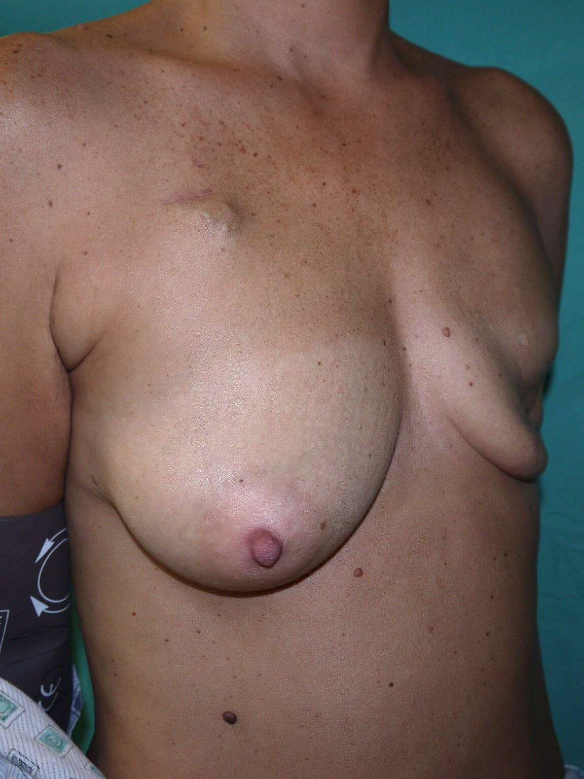 Breast Reconstruction Before - Right Oblique View