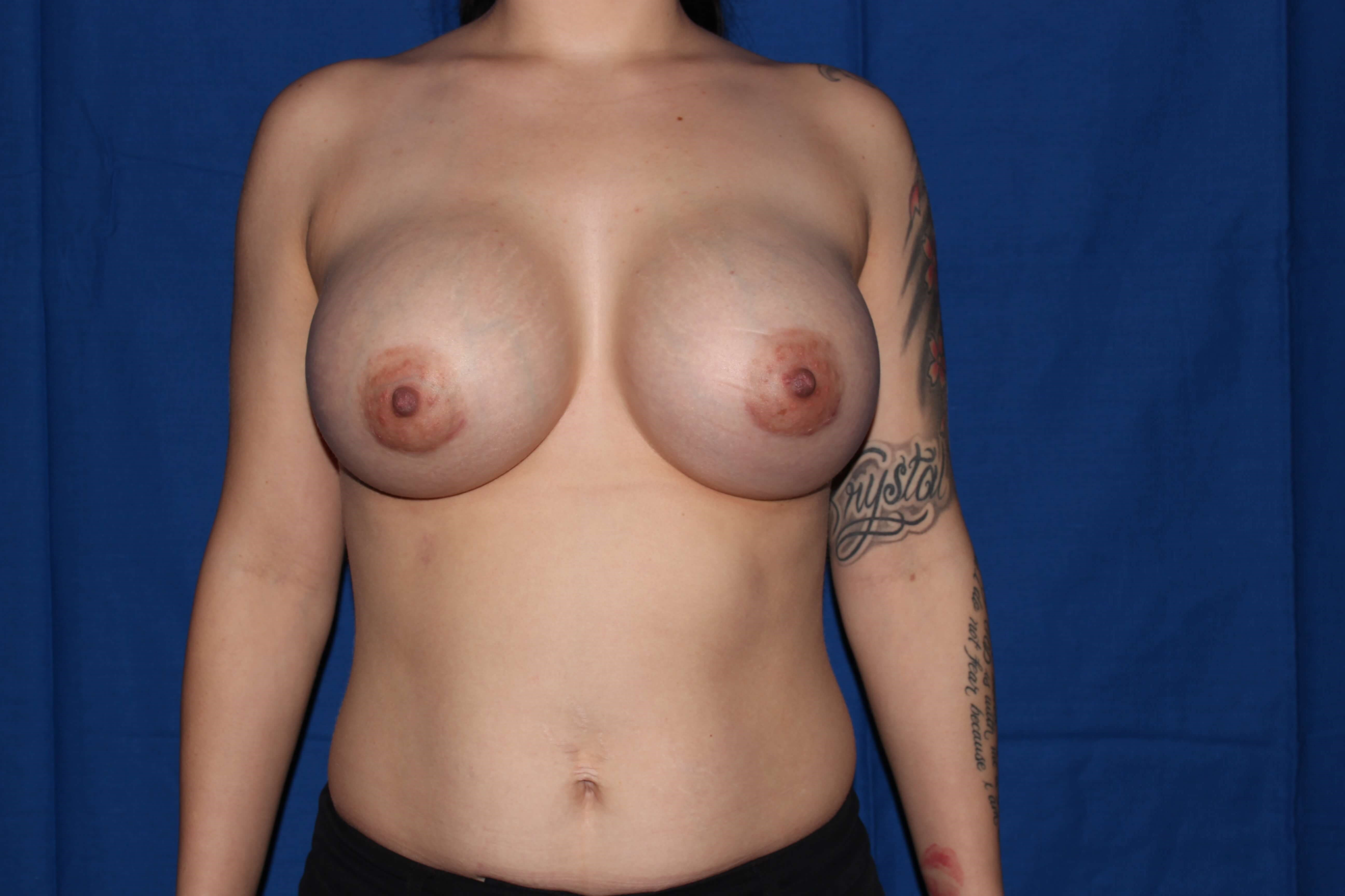 Silicone Implants After - scottsdale Breast Augmentation