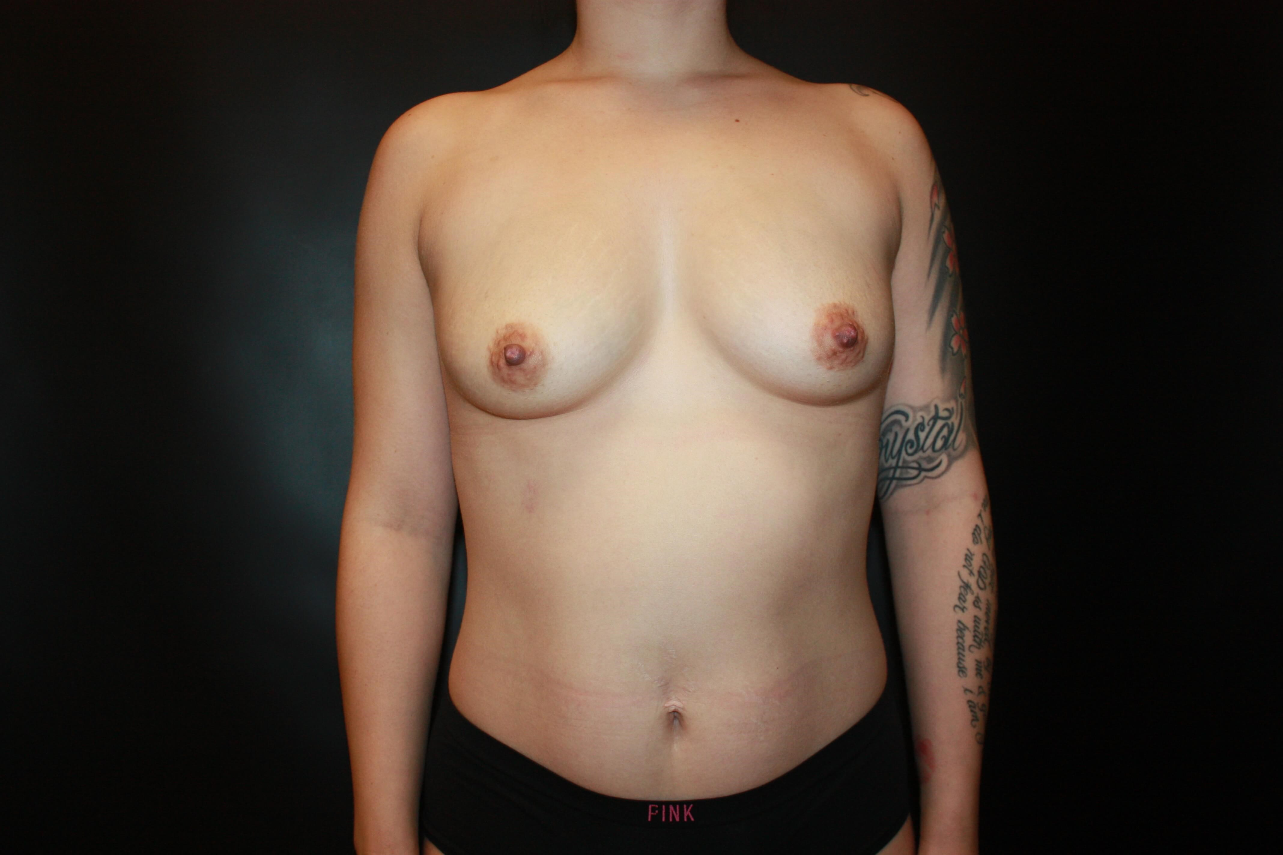 Silicone Implants Before - scottsdale Breast Augmentation