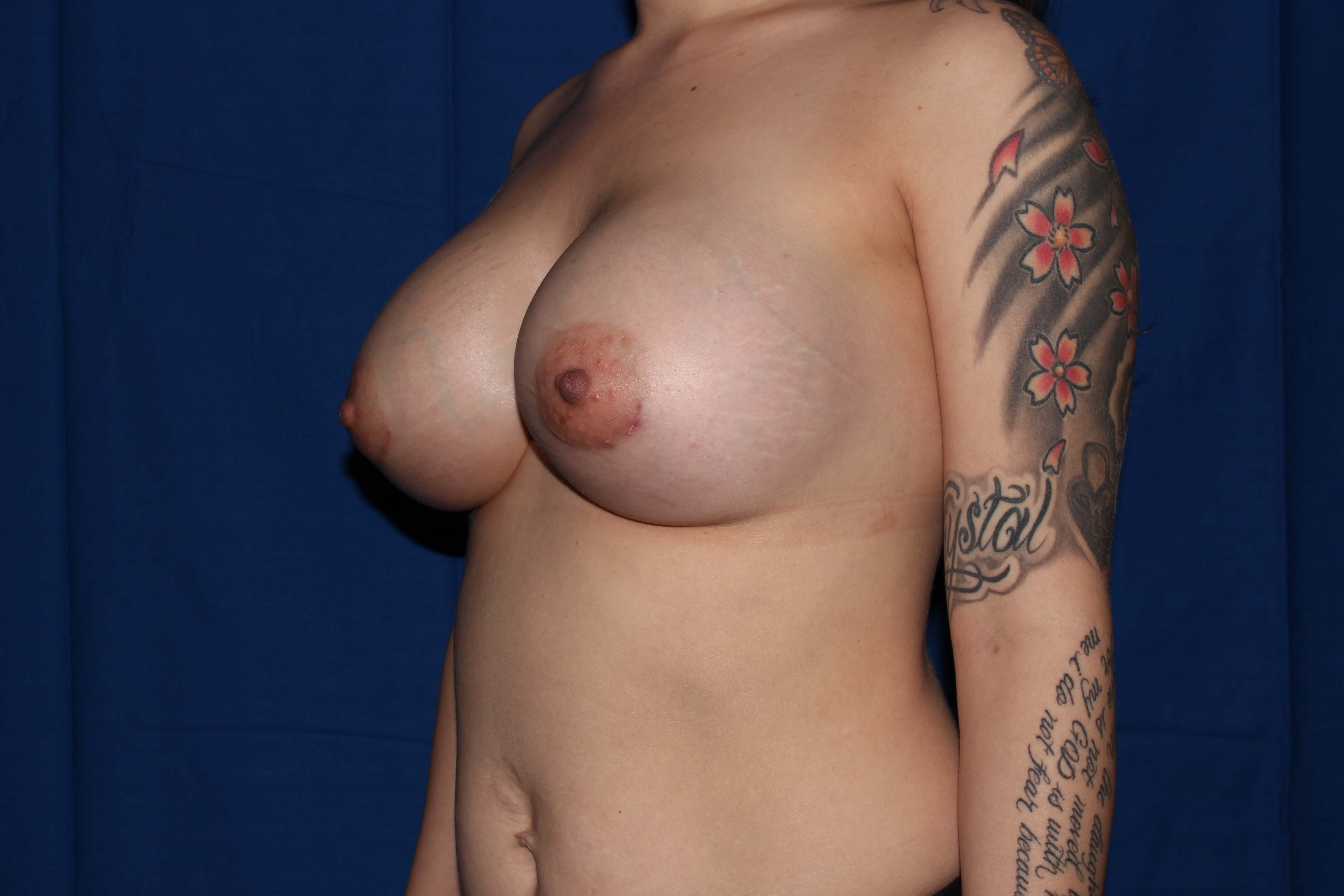 Silicone Implants After - Scottsdale BAM