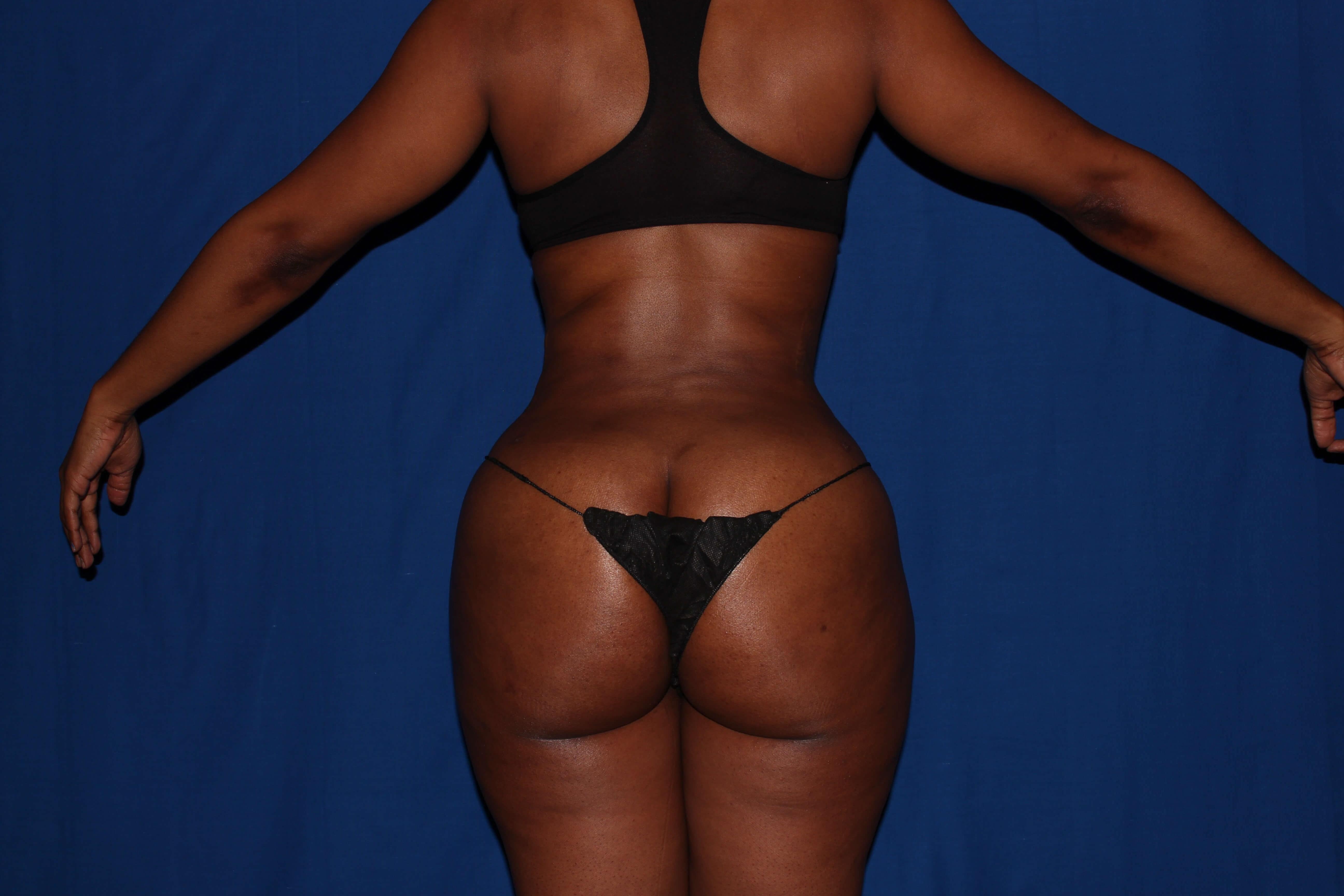 Liposuction with BBL After - Scottsdale, AZ BBL