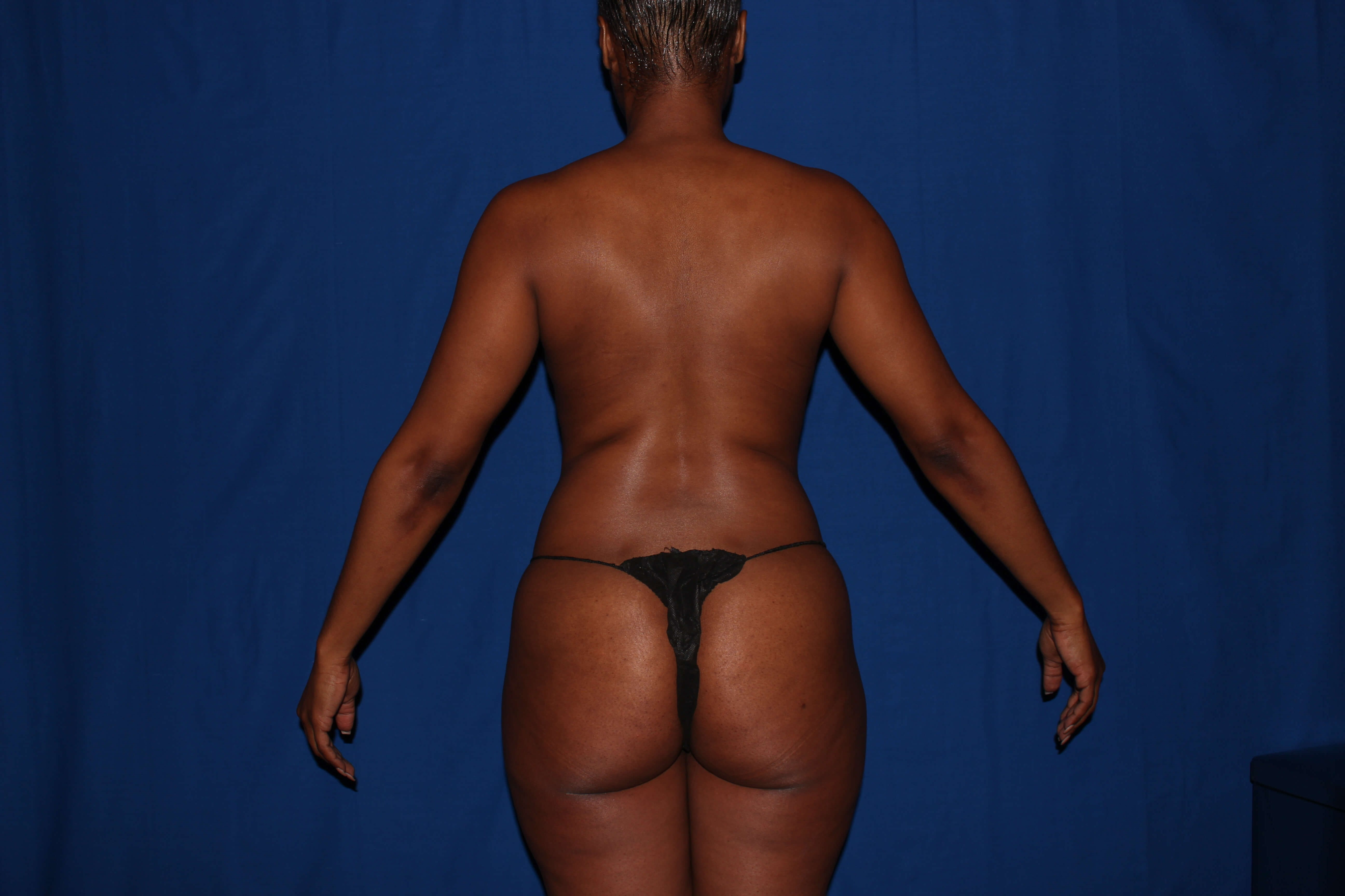 Liposuction with BBL Before - Scottsdale, AZ BBL
