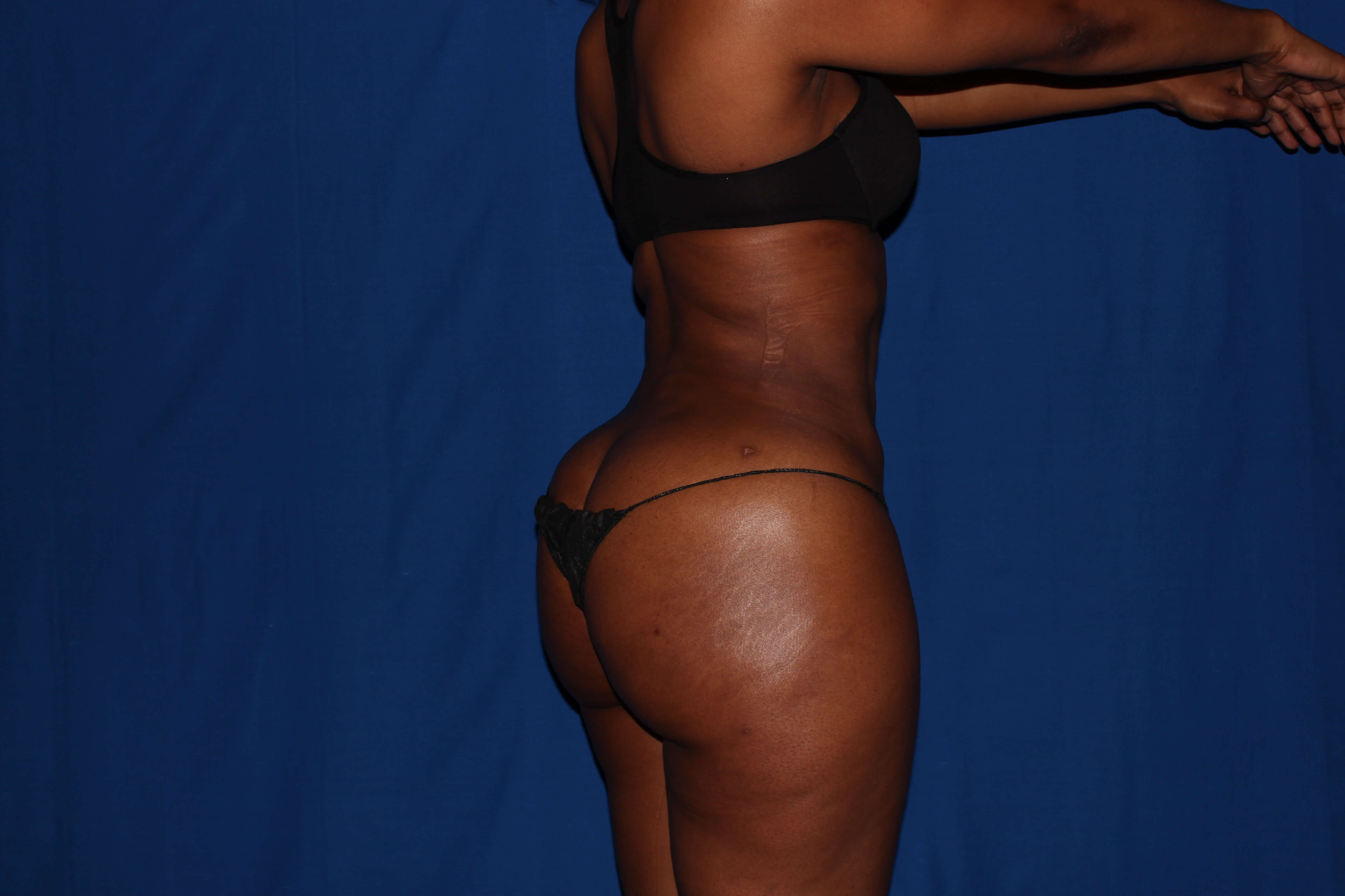 Liposuction with BBL After - Phoenix Area BBL