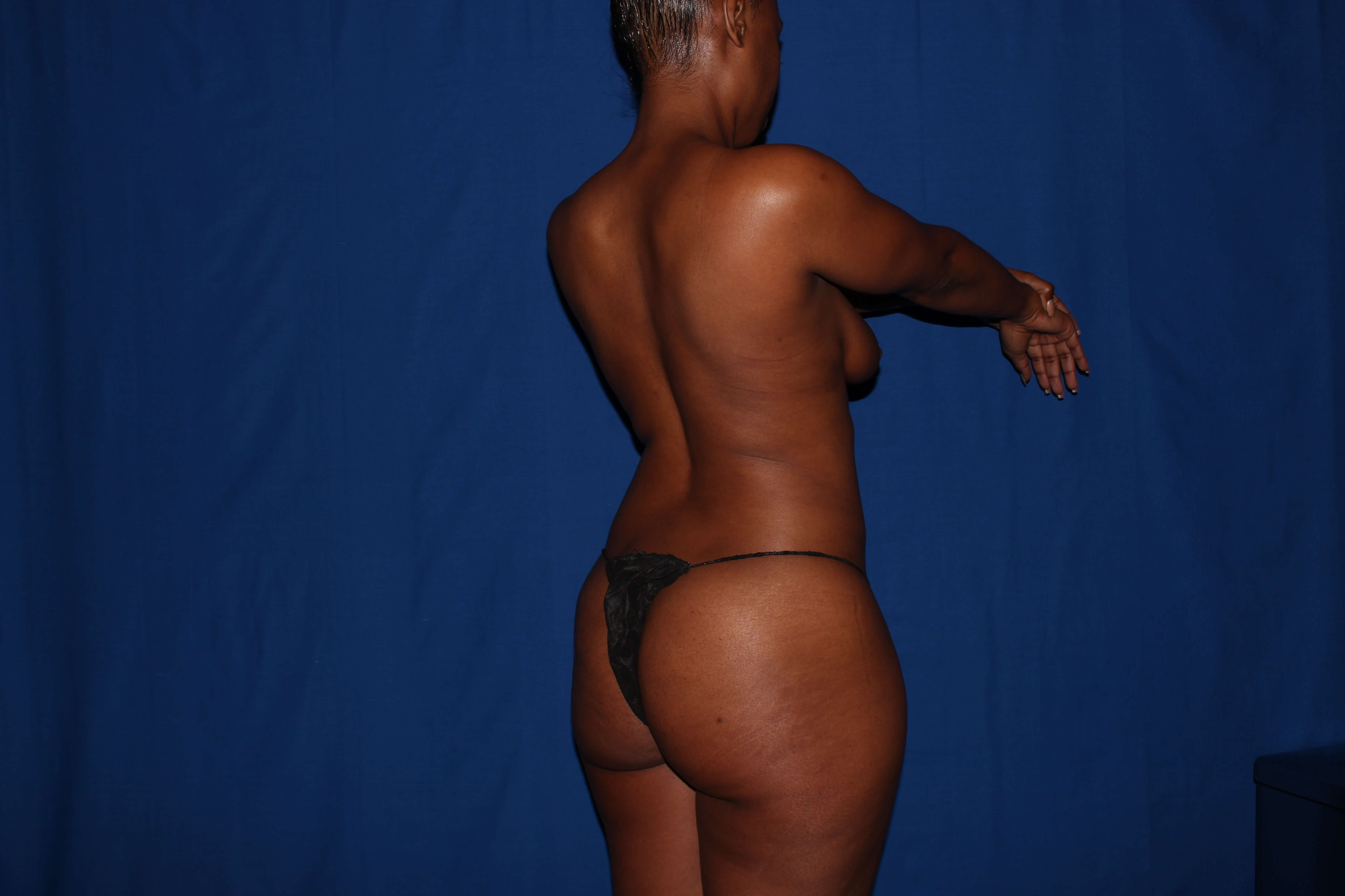 Liposuction with BBL Before - Phoenix Area BBL