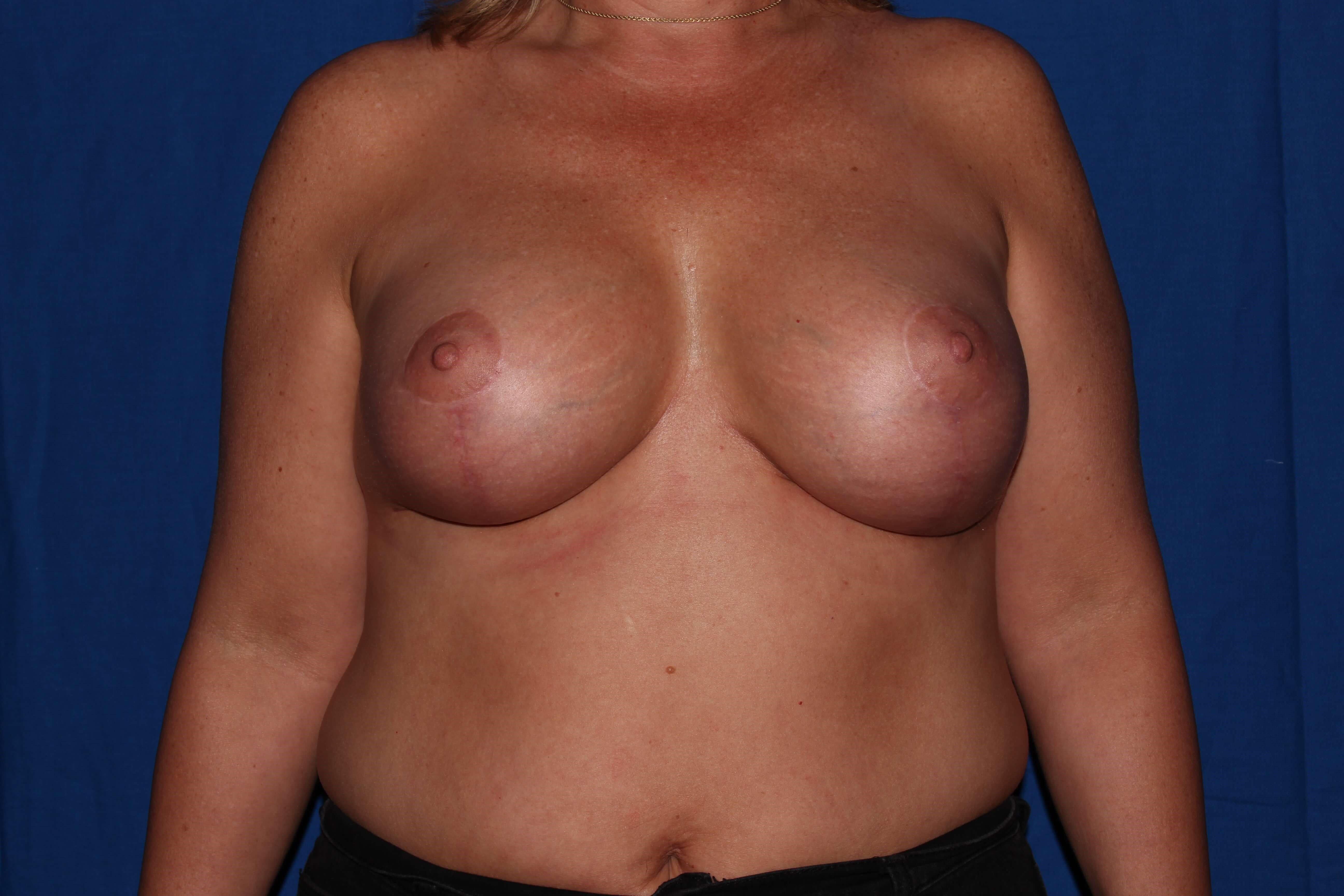 Breast Lift After - Prescott, Az Breast Revision