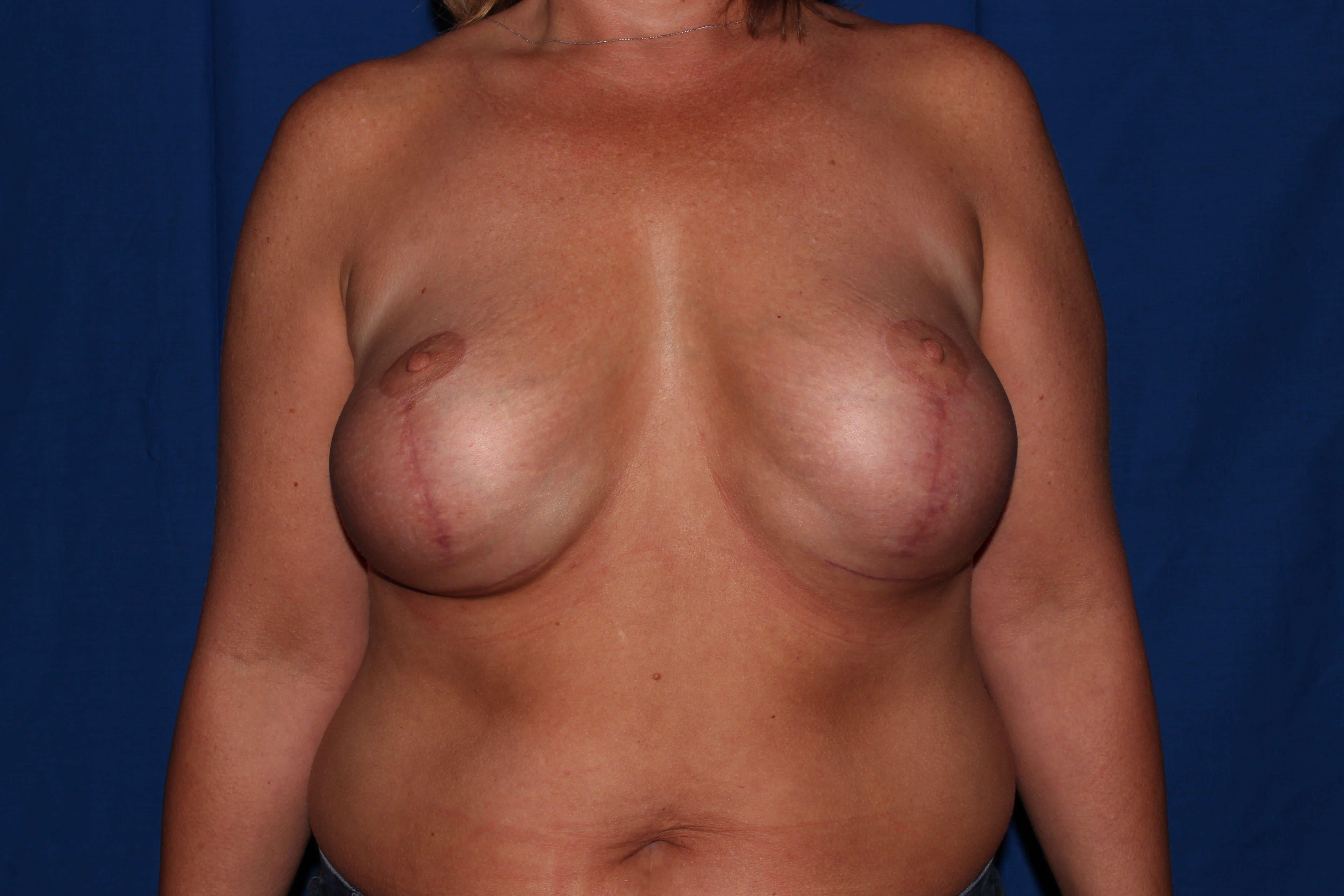 Breast Lift Before - Prescott, Az Breast Revision