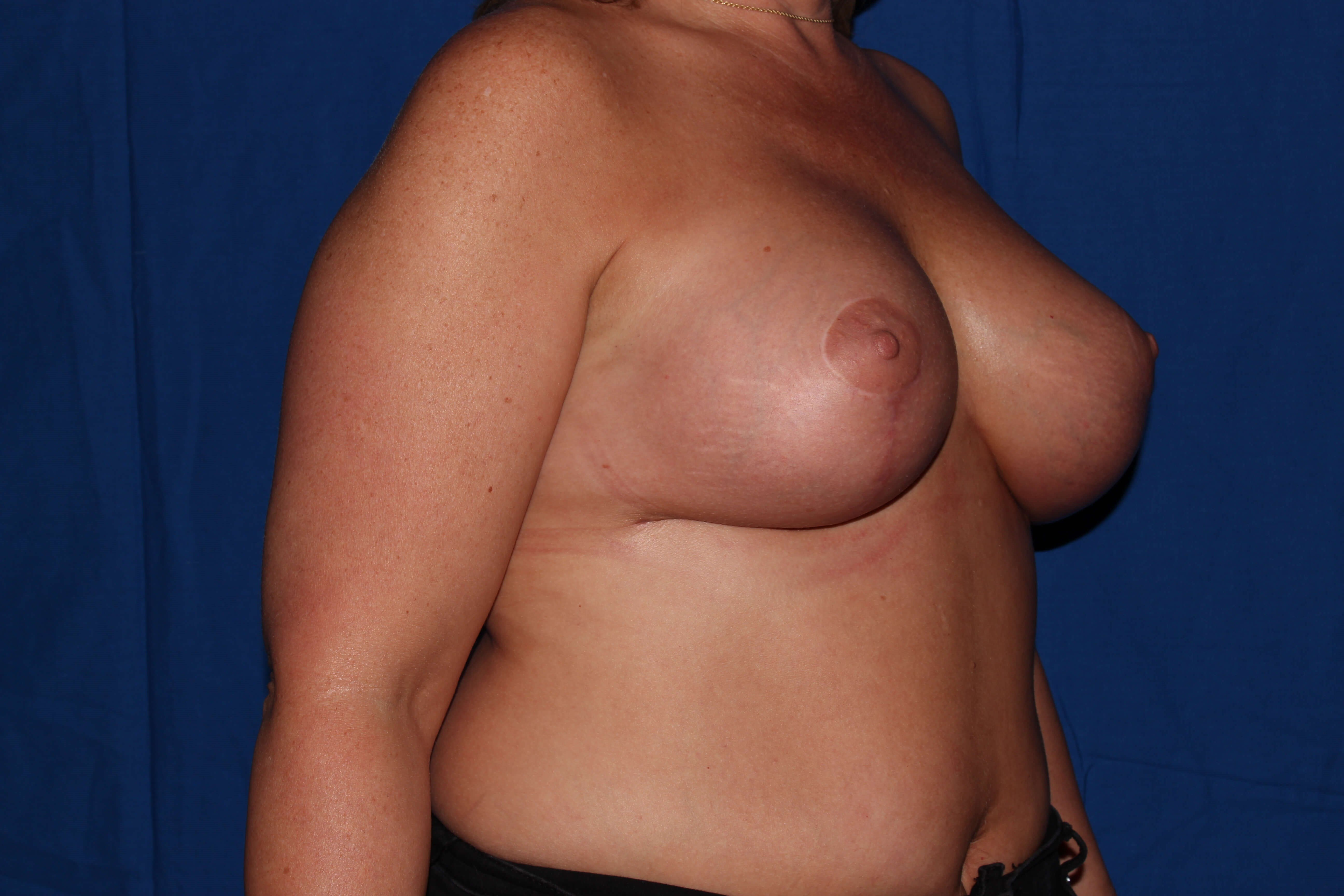 Breast Lift After - Scottsdale Breast Revision