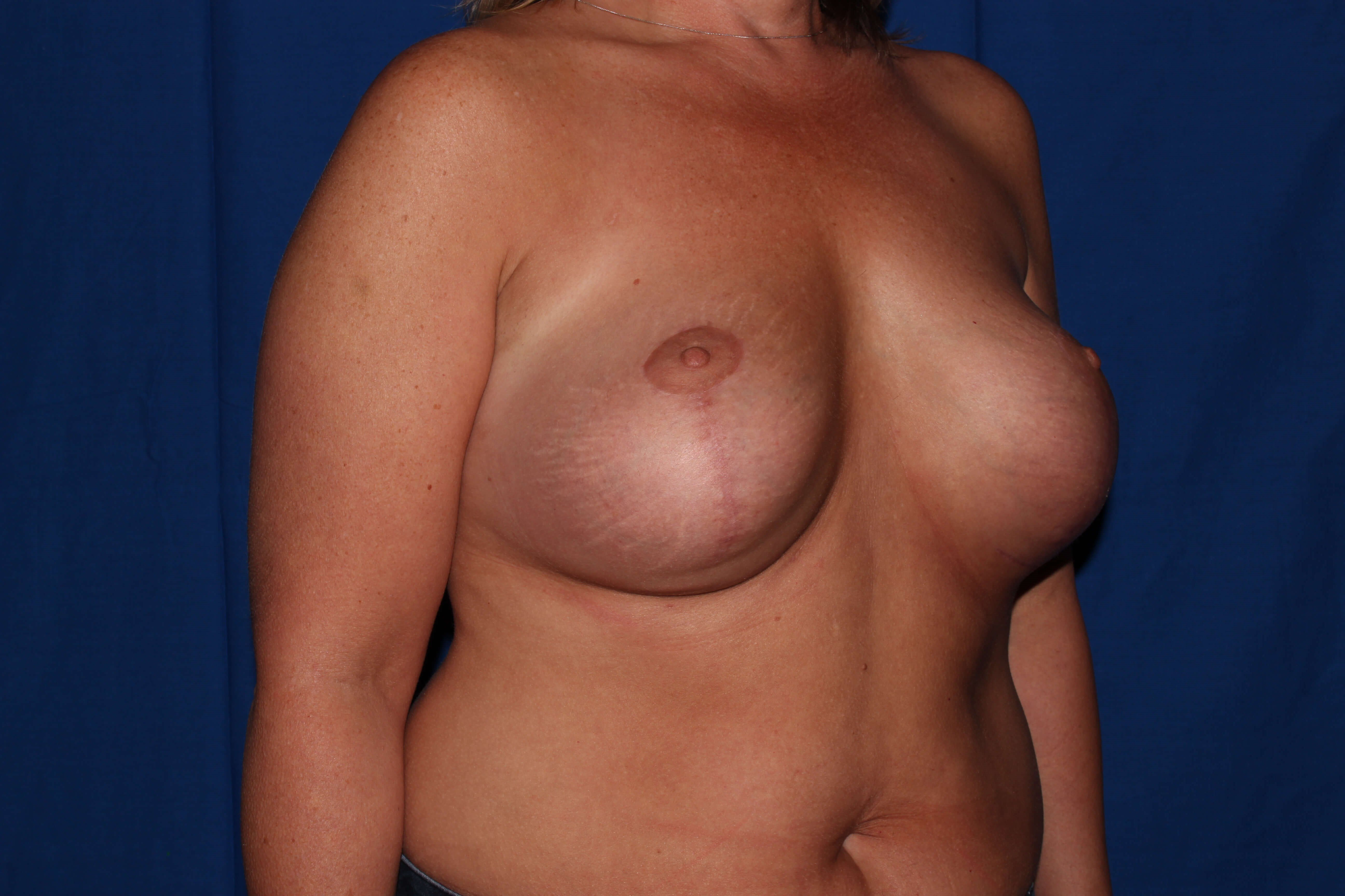 Breast Lift Before - Scottsdale Breast Revision