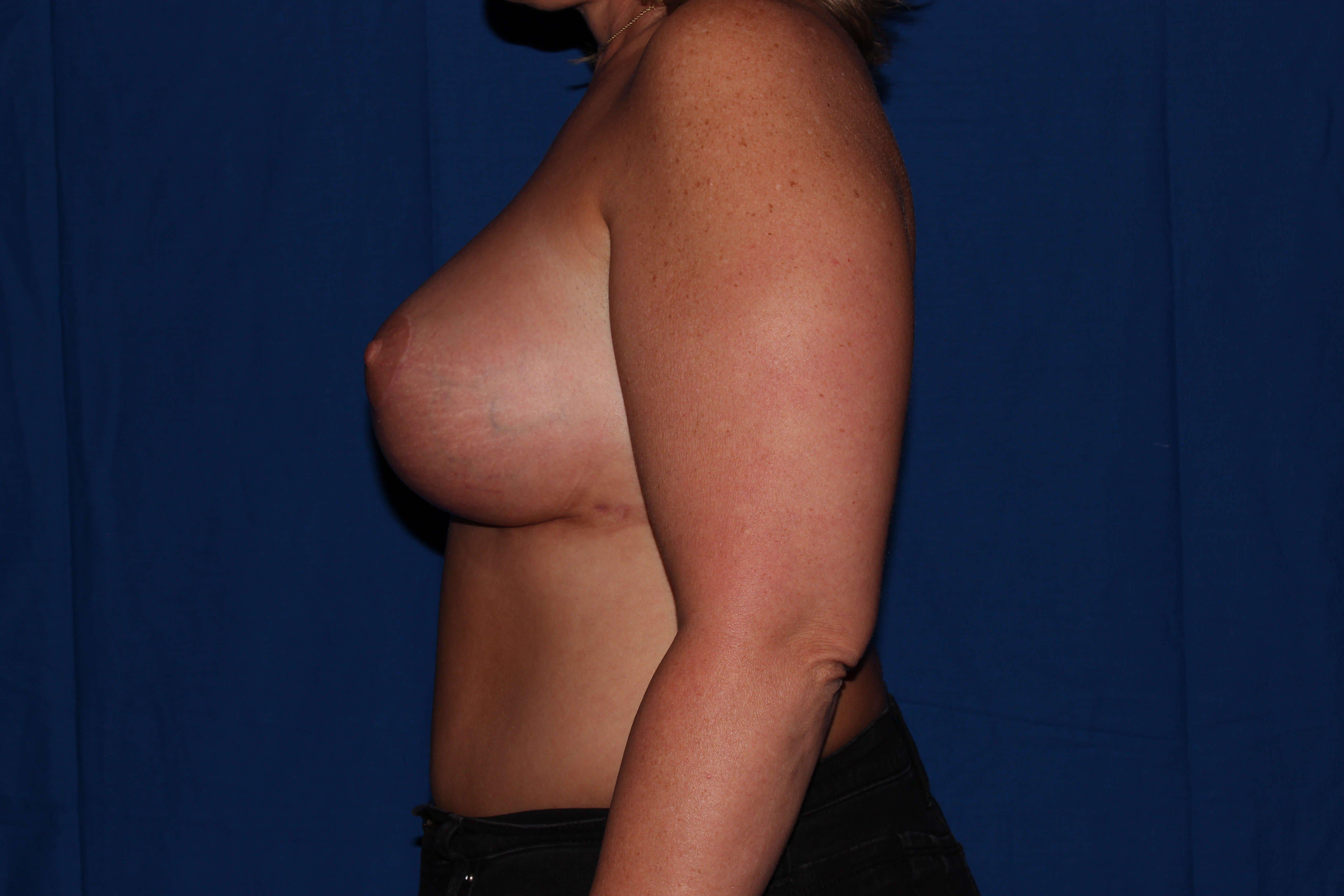 Breast Lift After - Prescott Az Breast Revision