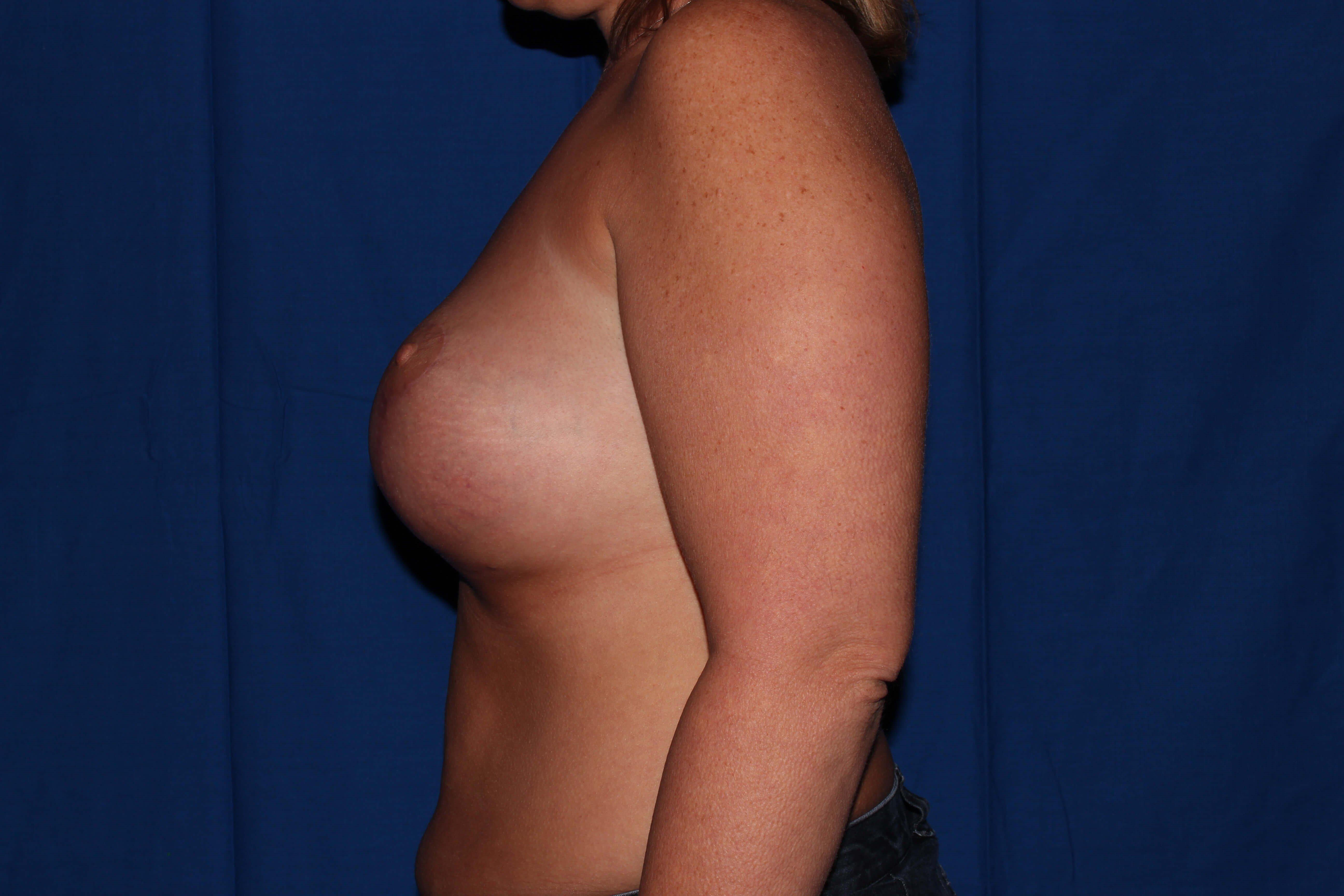 Breast Lift Before - Prescott Az Breast Revision