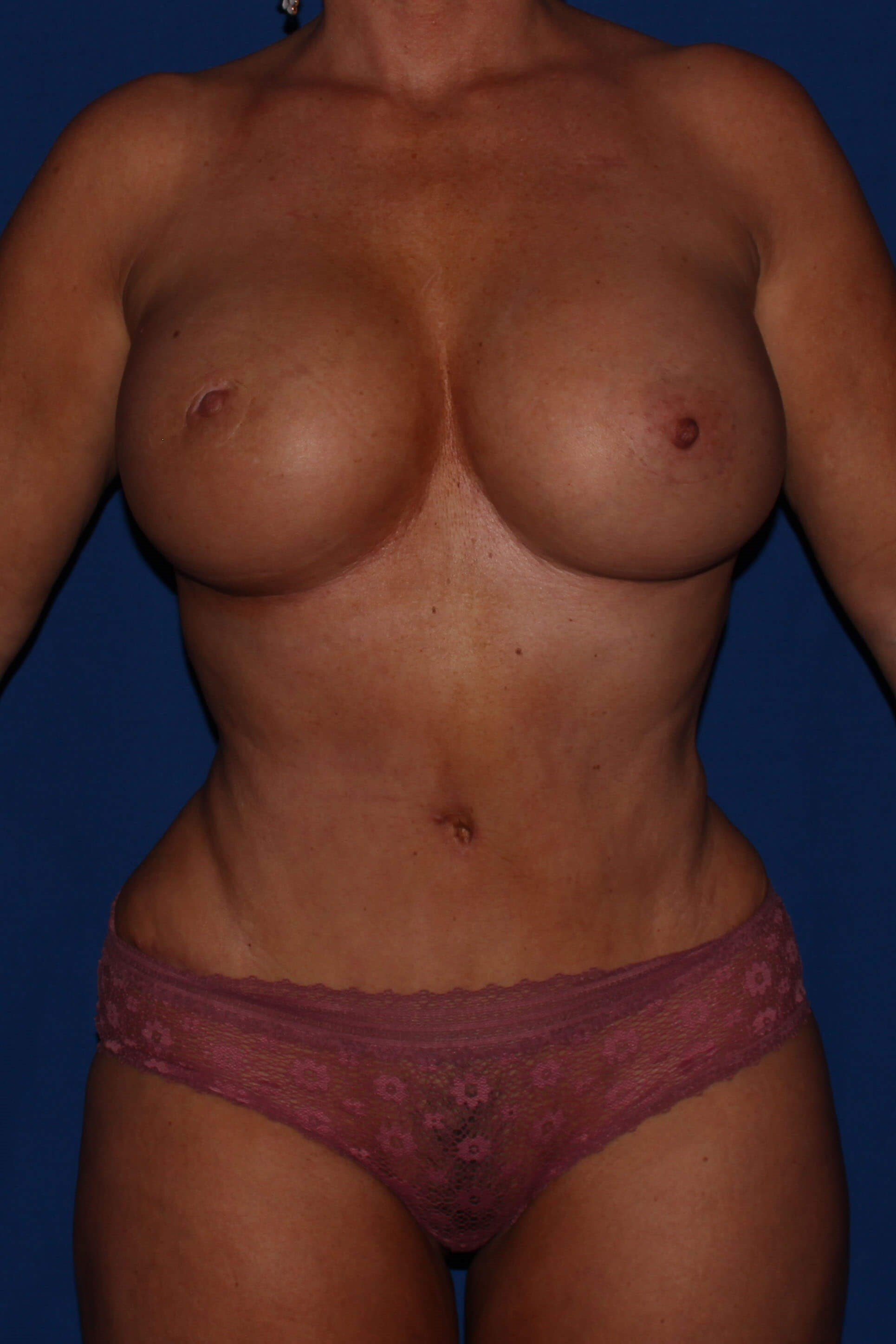 Liposuction after - Scottsdale AZ mommy makeover