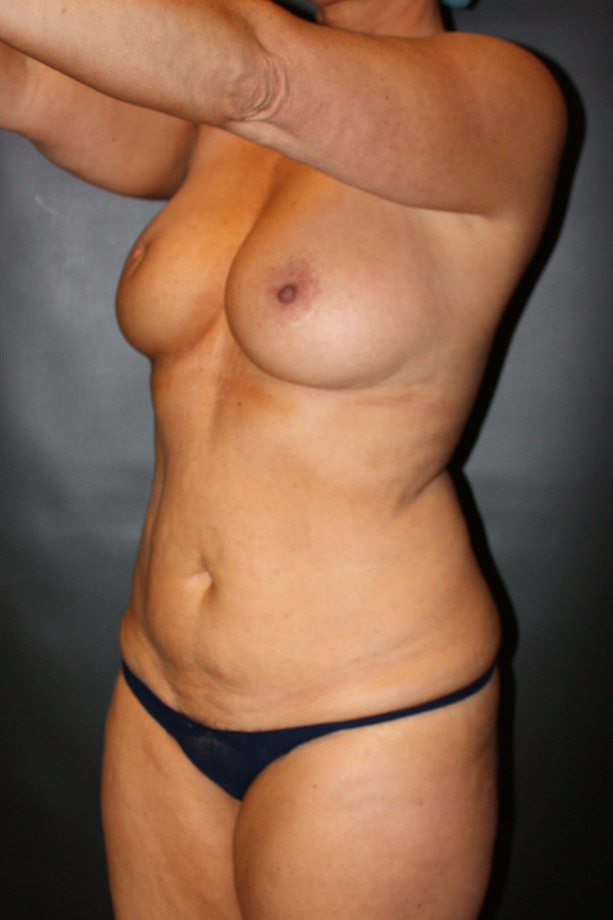 Liposuction Before - Scottsdale AZ mommy makeover