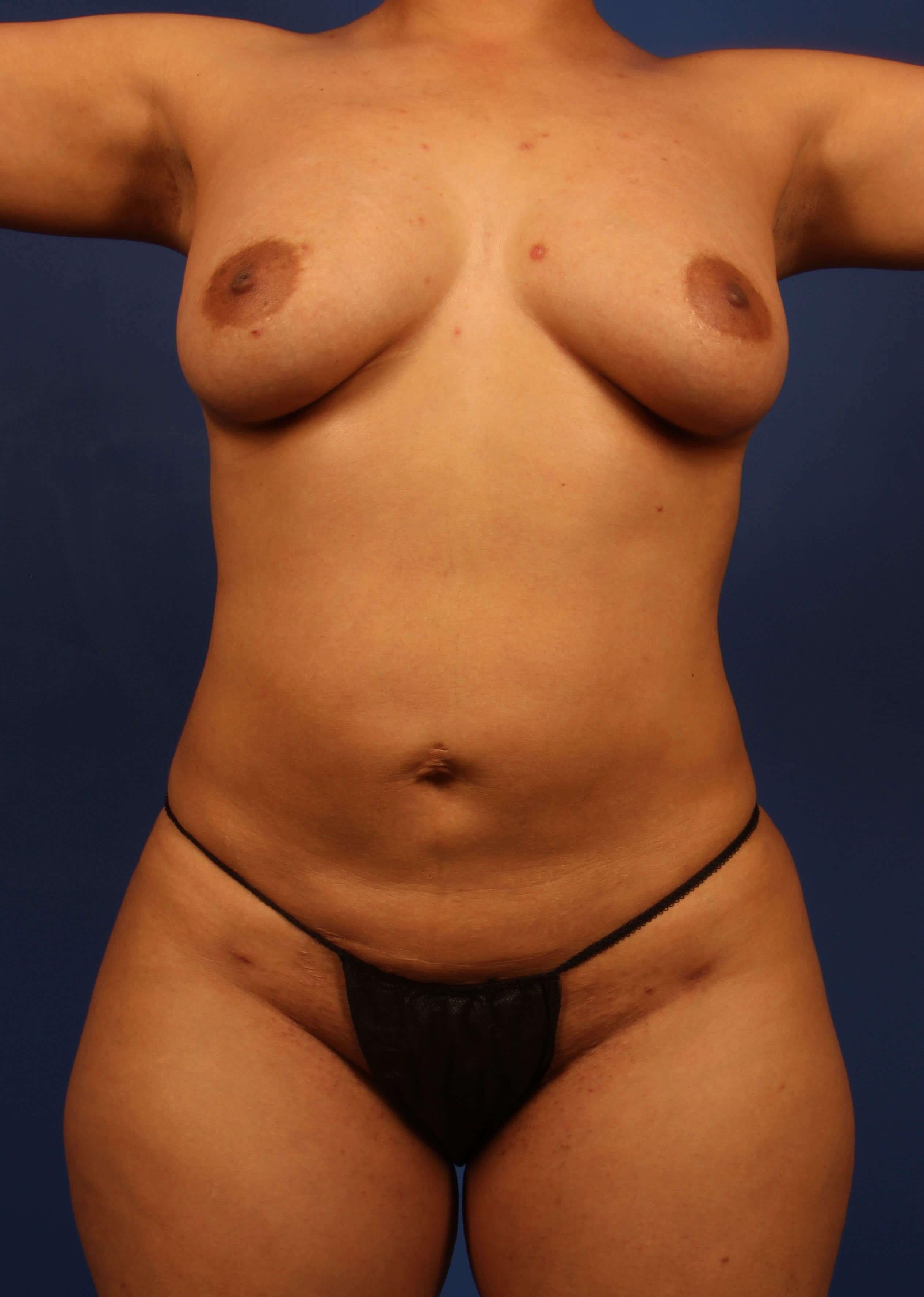 liposuction after - Front View - Scottsdale body liposuction