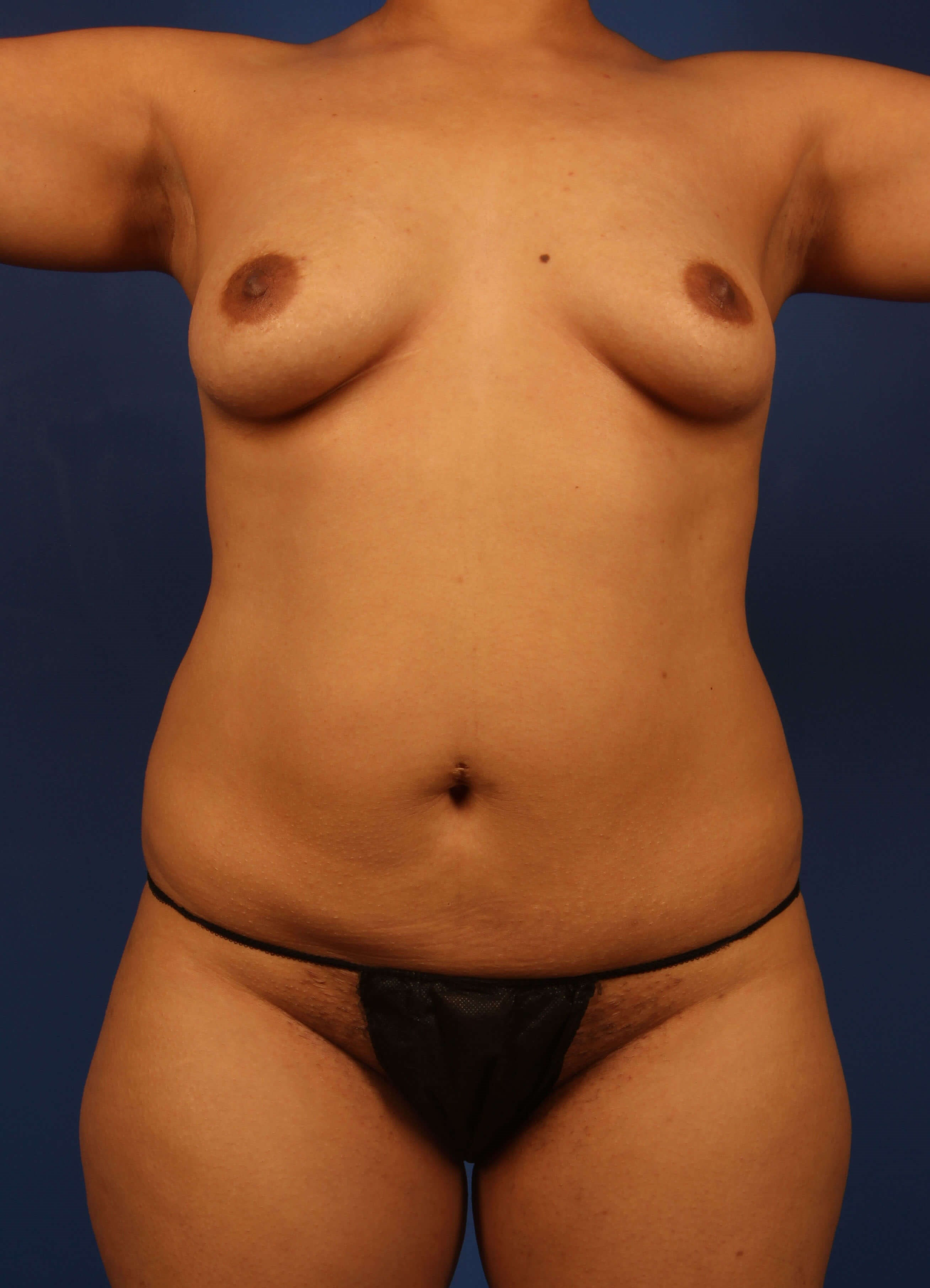 liposuction Before - Front View - Scottsdale body liposuction