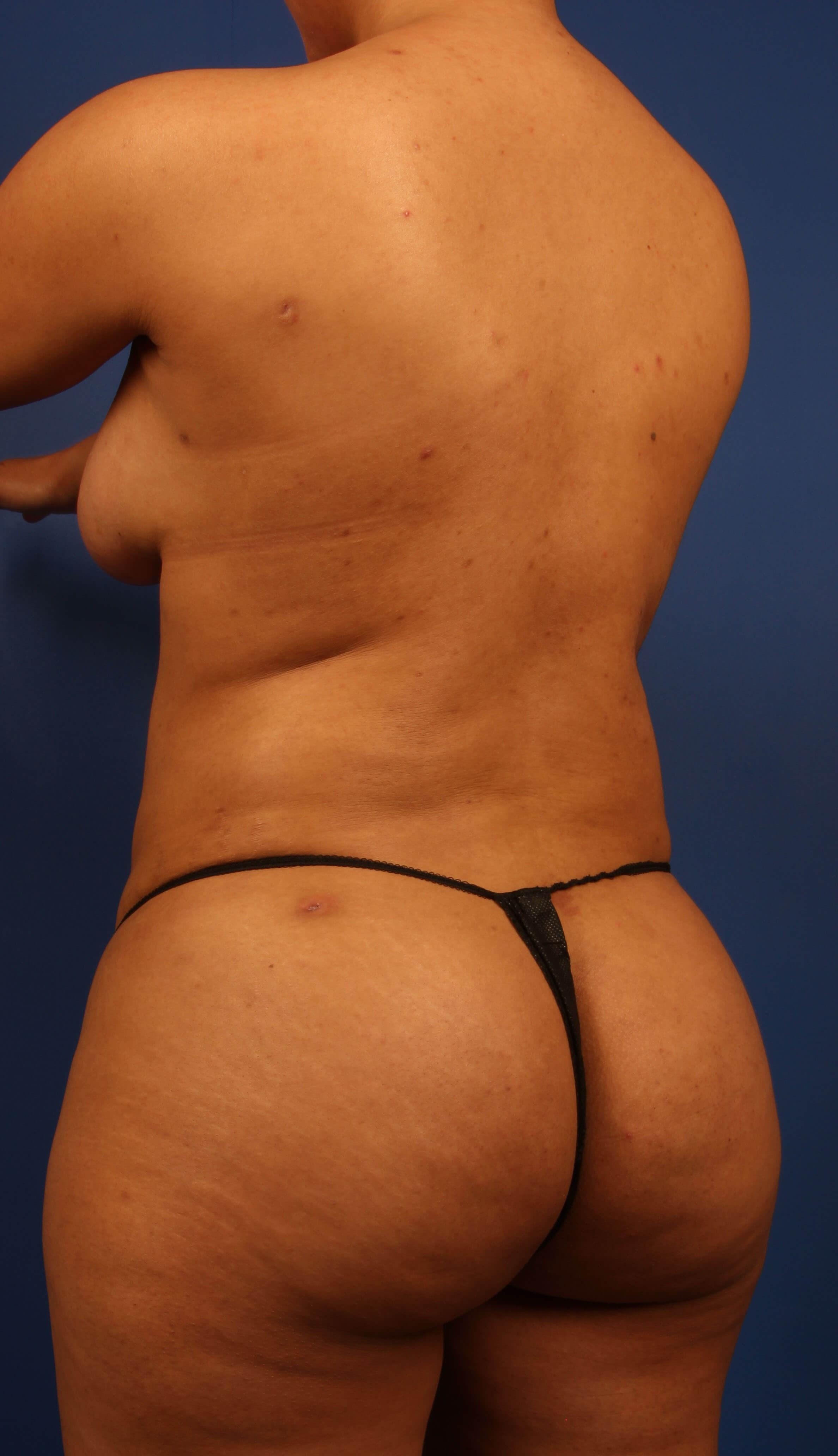 BBL fat transfer after - Scottsdale Liposuction BBL