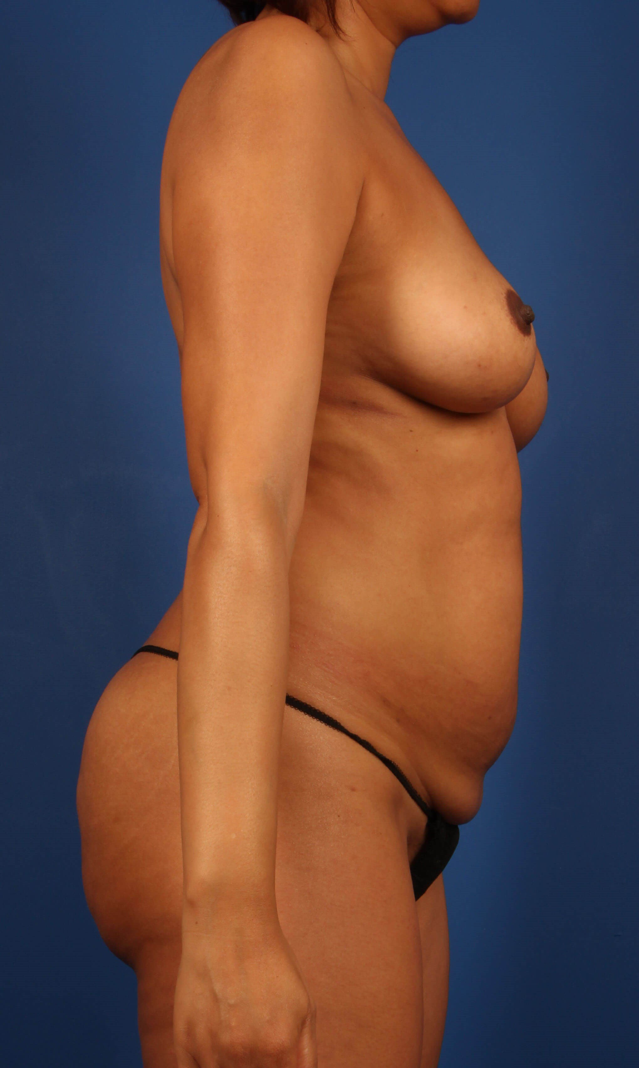 fat transfer to the breast and butt before - Scottsdale AZ mommy makeover