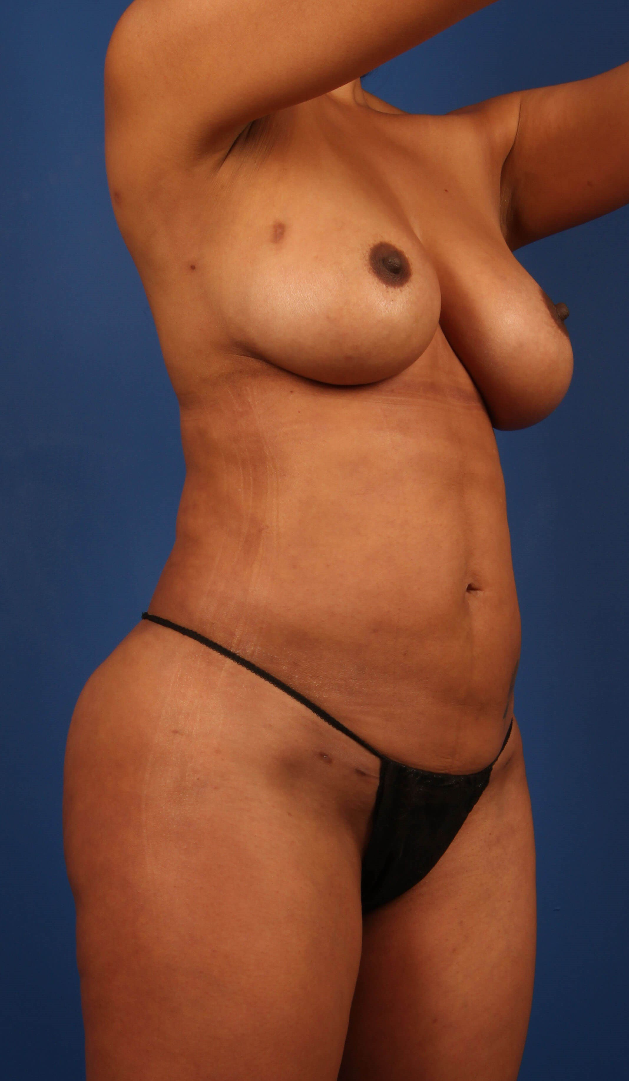 Liposculpting after - Scottsdale MommyMakeover w/fat
