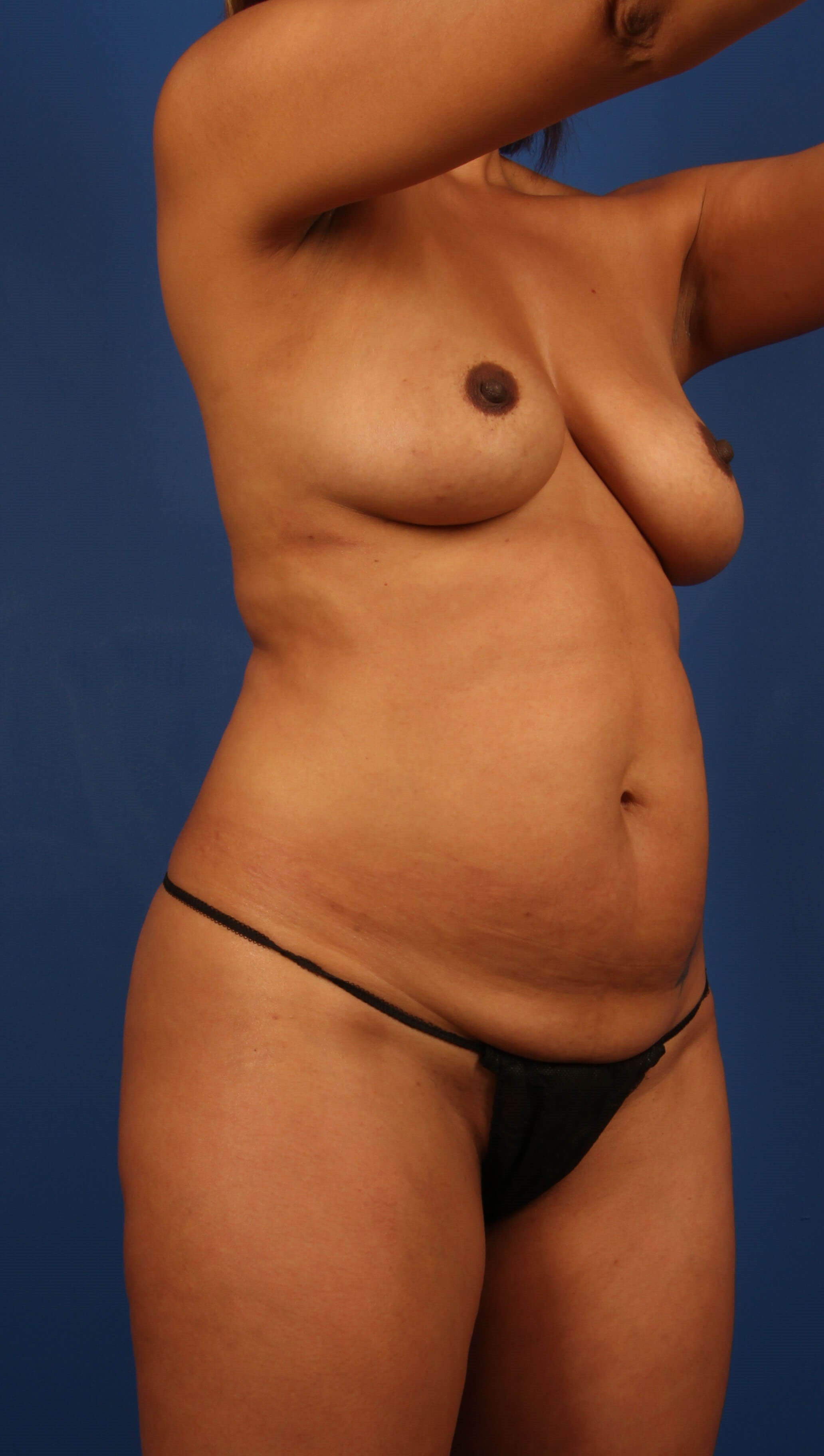Liposculpting before - Scottsdale MommyMakeover w/fat