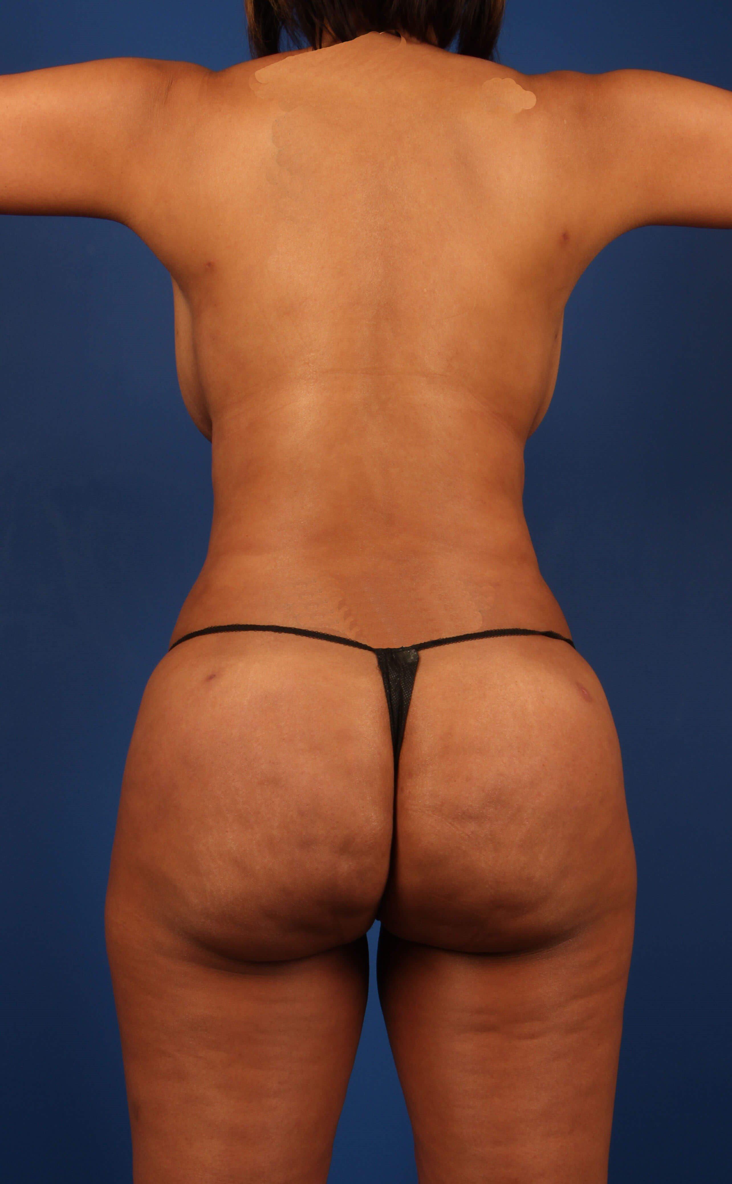 After Brazilian Butt Lift - Scottsdale AZ Butt makeover