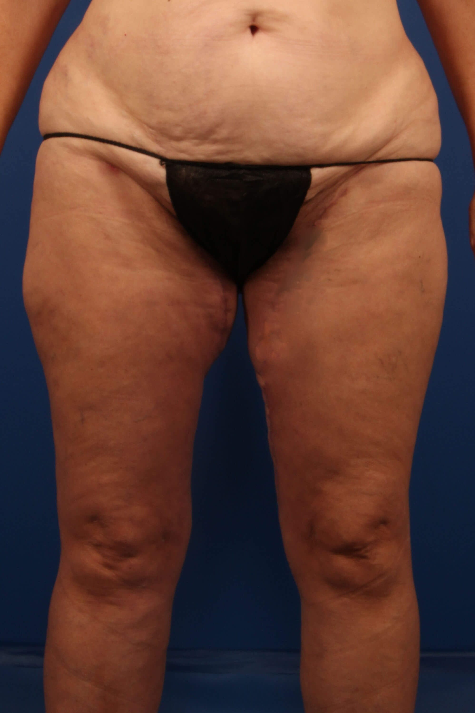 Thigh Lift after - Scottsdale Liposuction and MTL