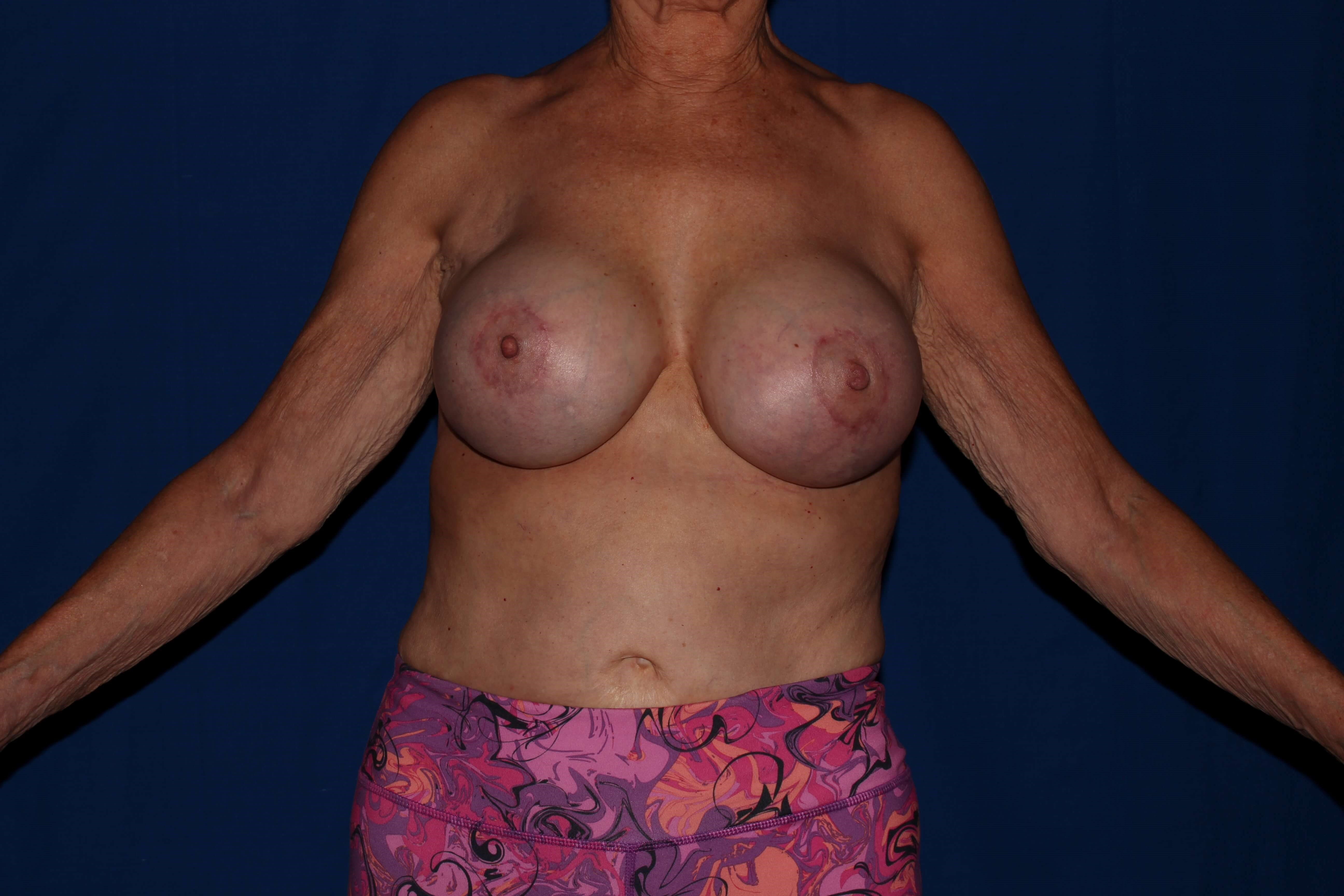 Breast Augmentation after - Scottsdale, AZ Breast Revision